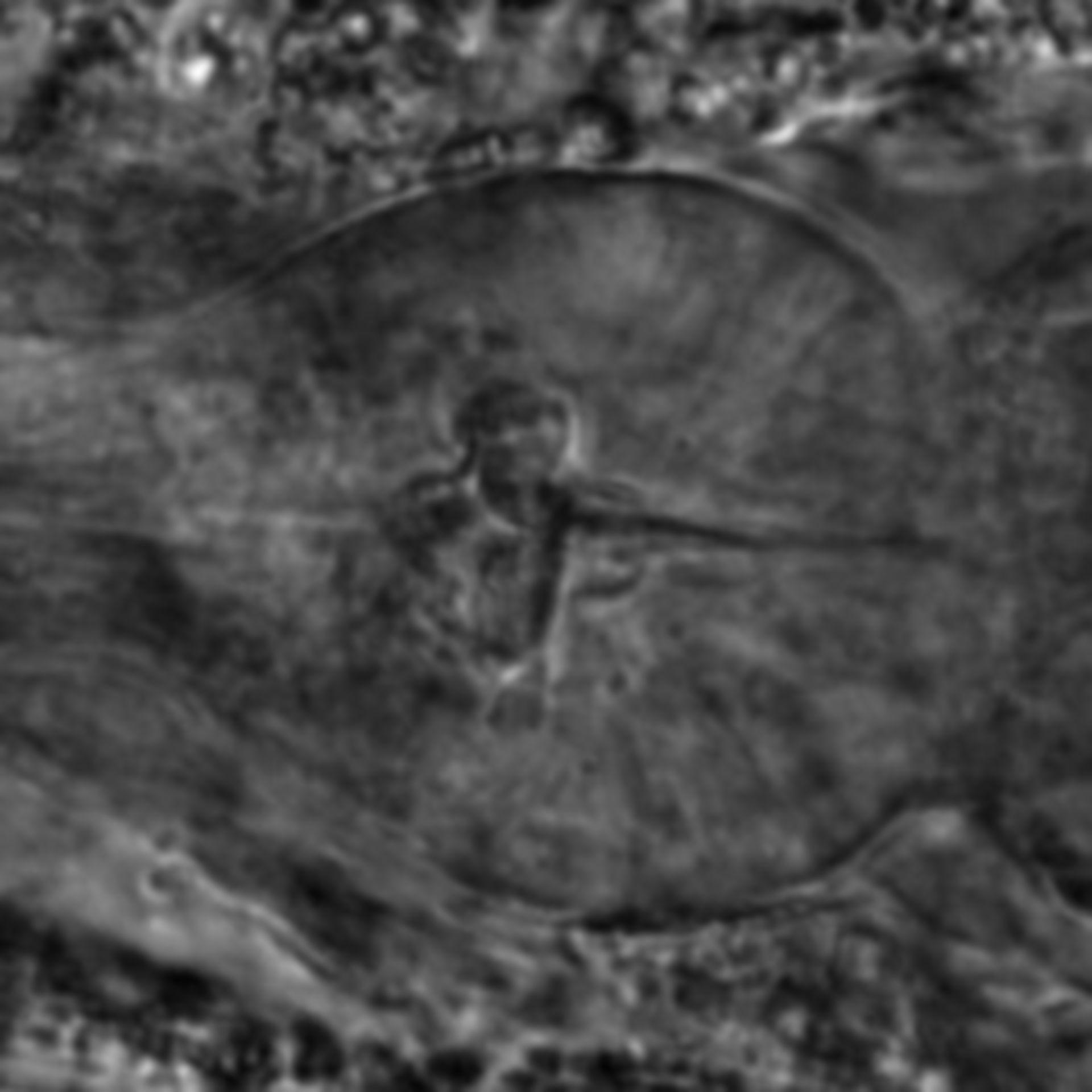 Caenorhabditis elegans - CIL:2124