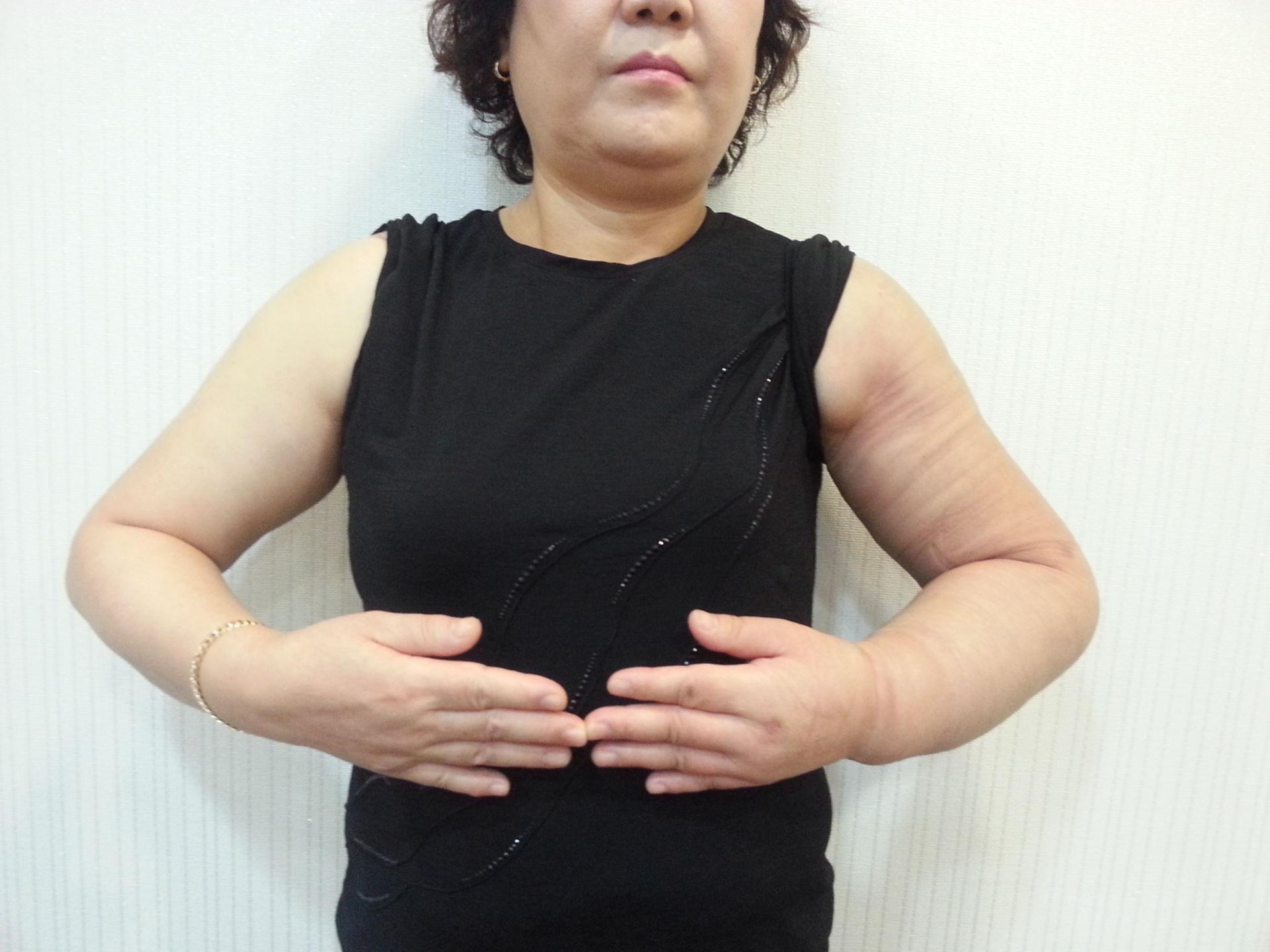 Lymphödem postoperativ Tag 28
