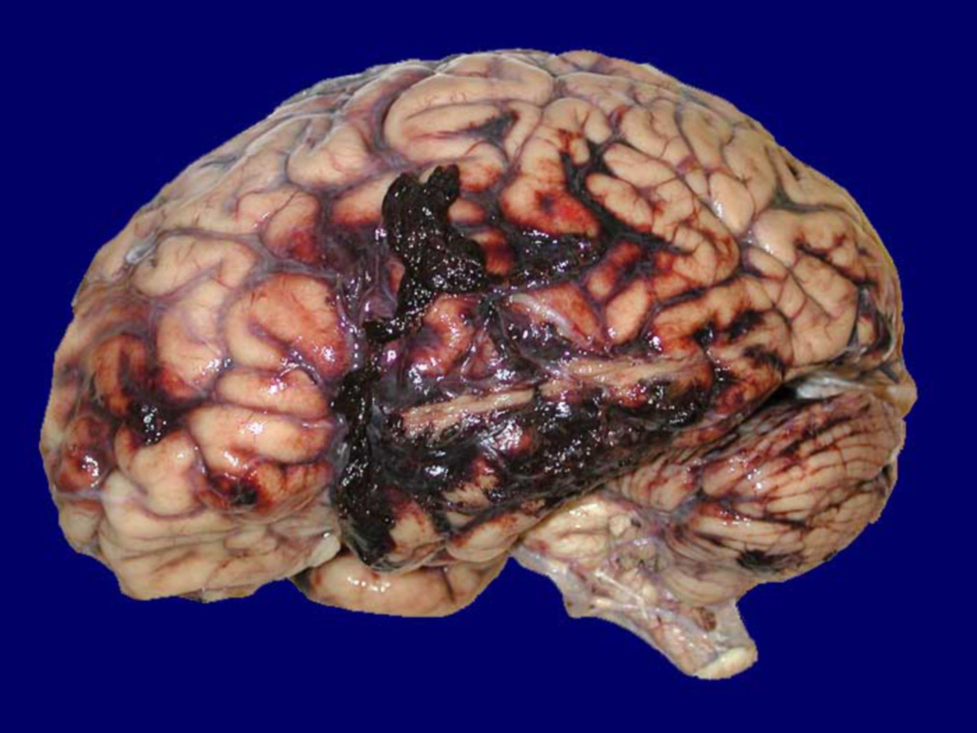 Frisches Subduralhämatom und Subarachnoidalblutung