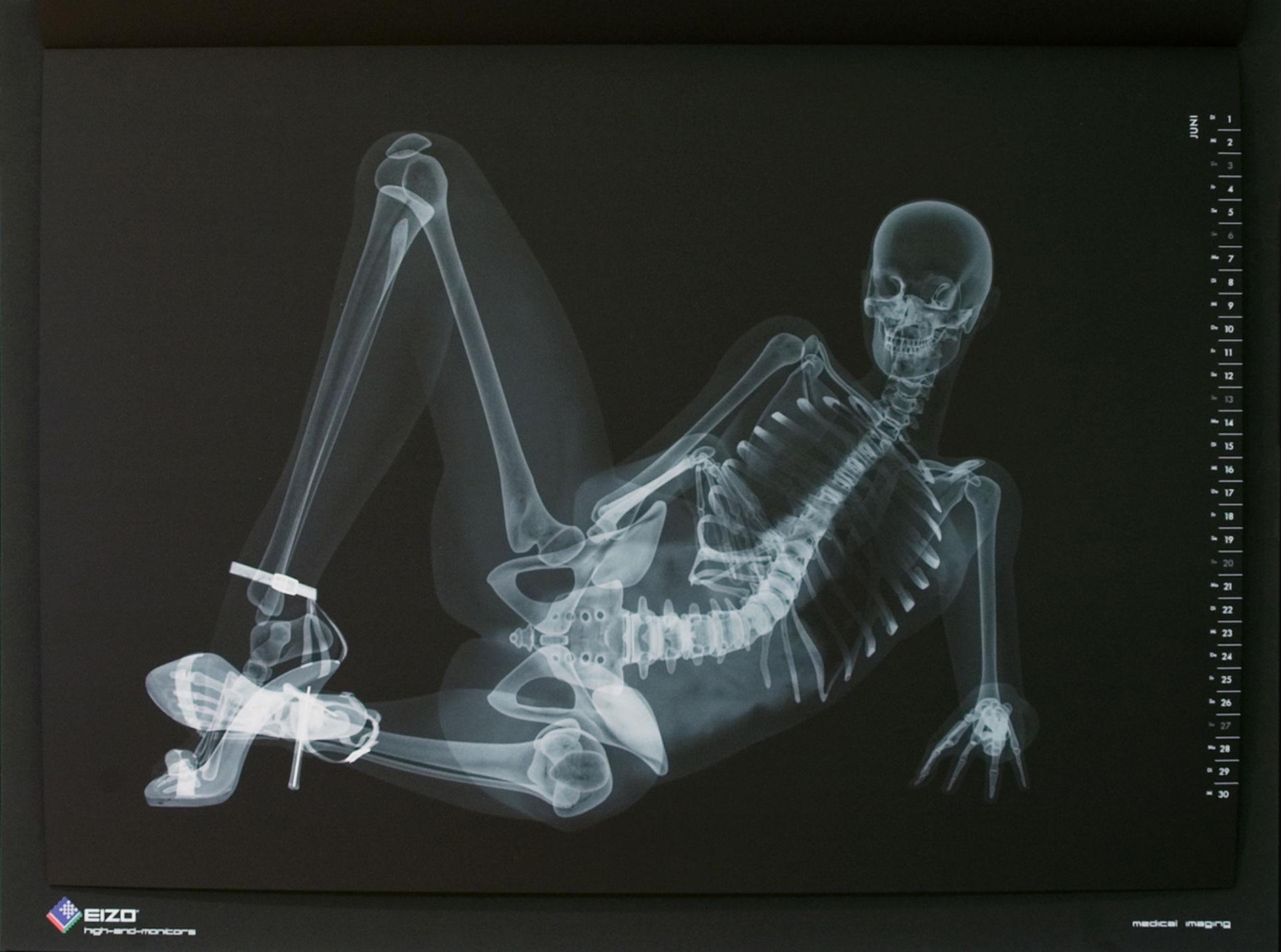 Diagnosi radiografica