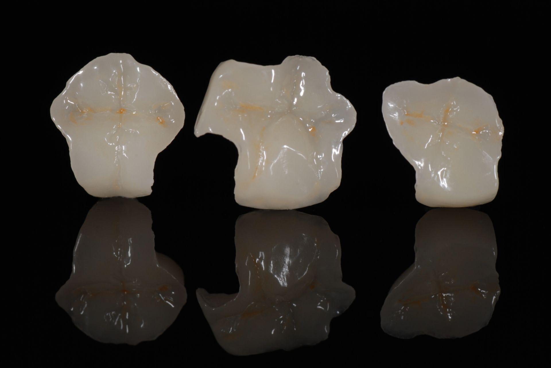 Intarsi Otturazioni in ceramica / porcellana