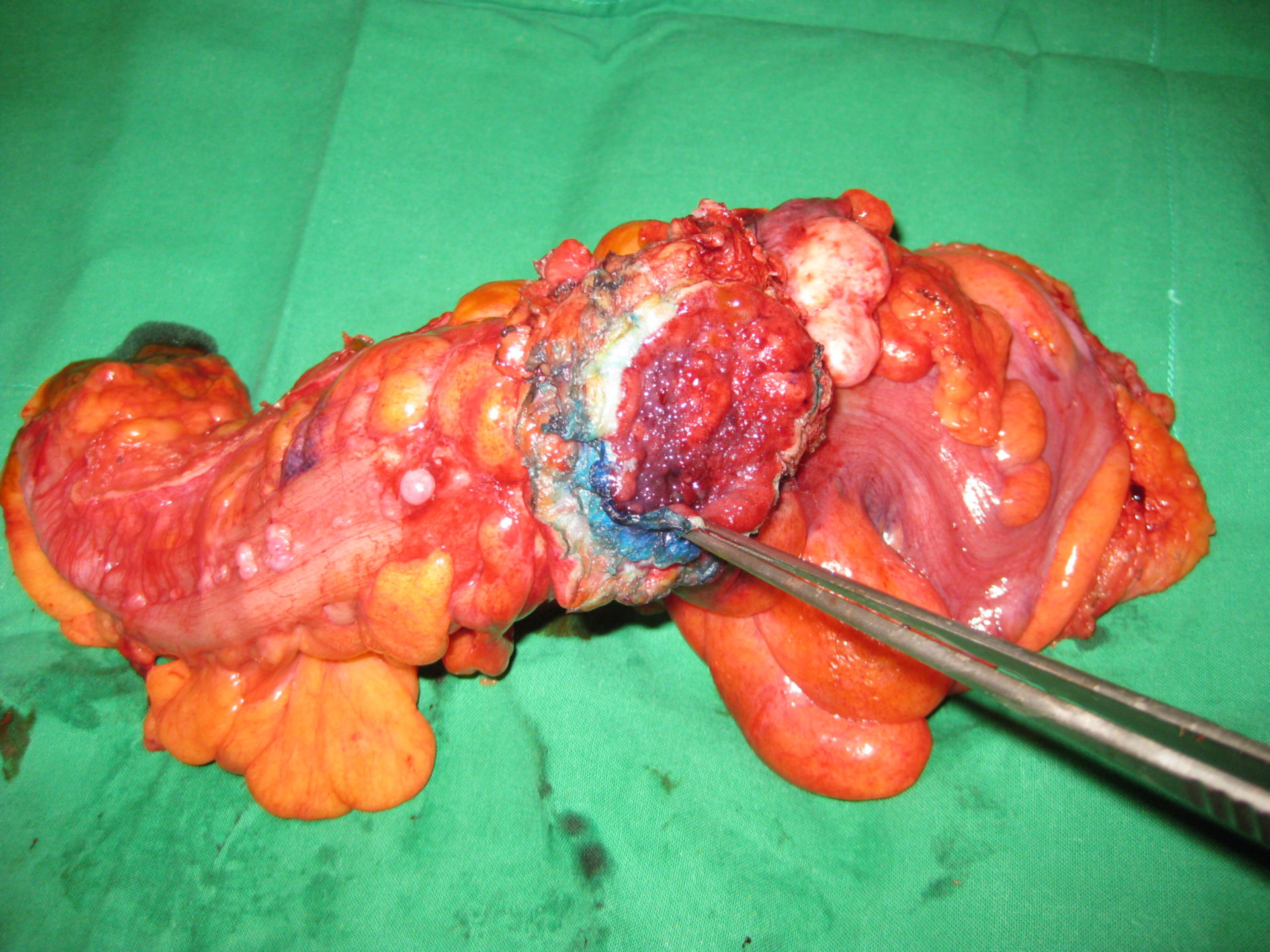Carcinoma of the sigmoid colon T4N2M1