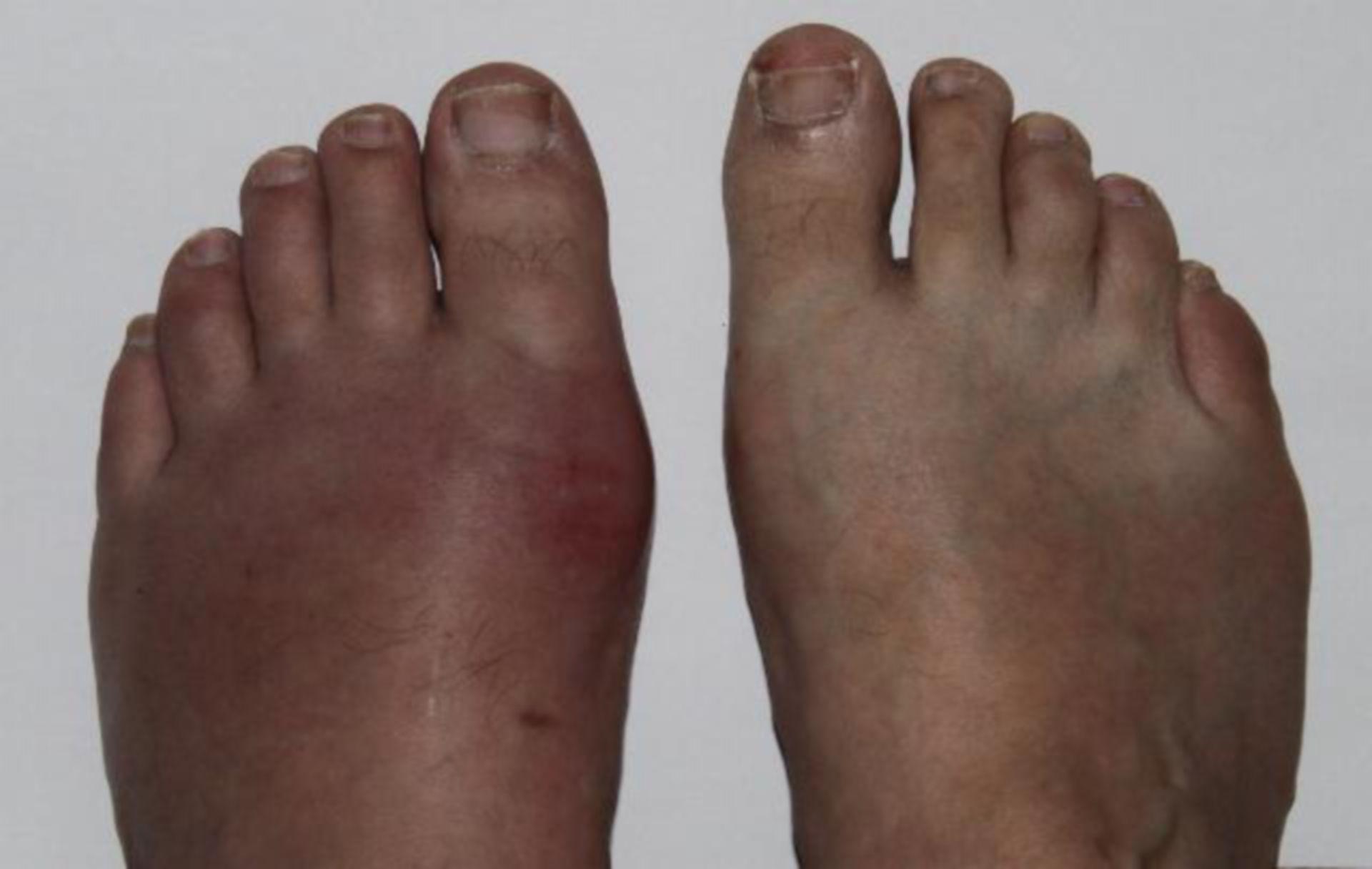 Podagra (ataque de artritis gotosa en el dedo gordo)