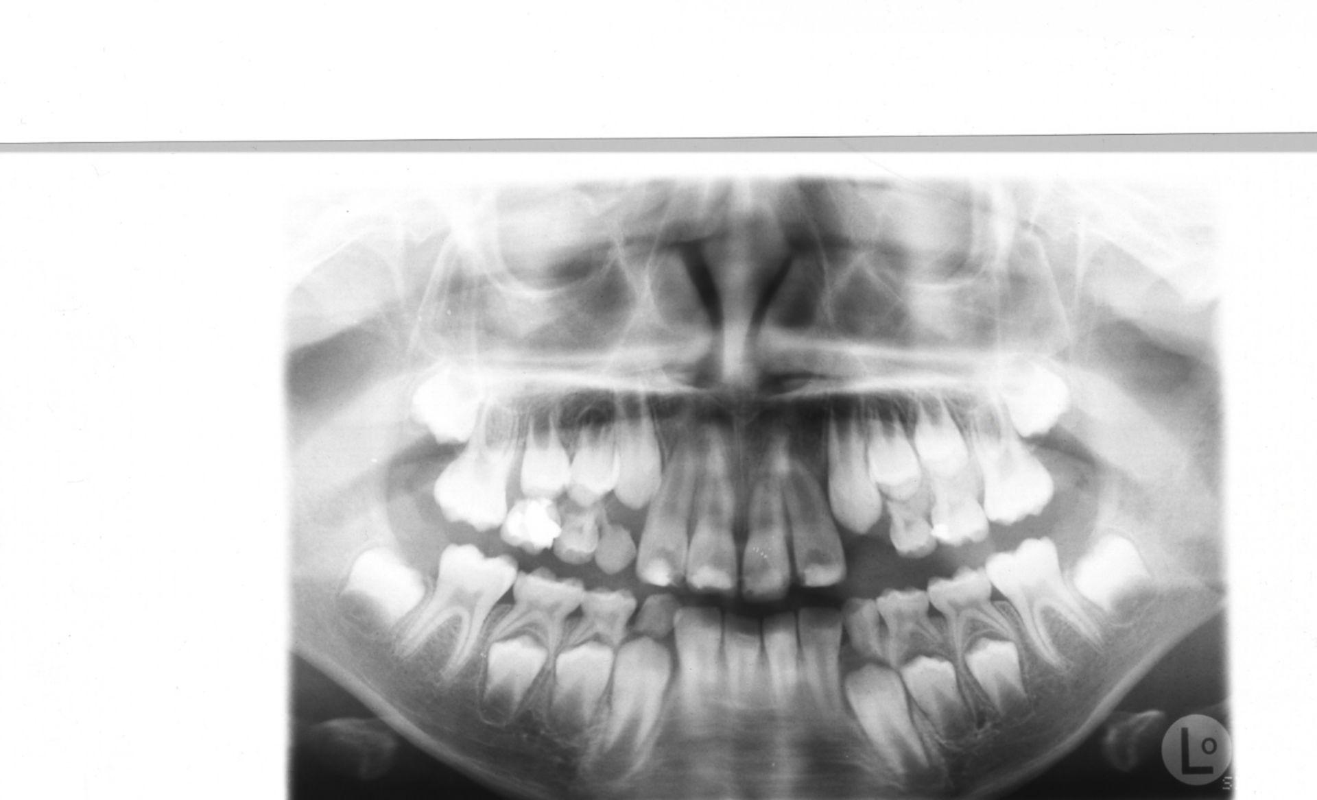 OPG trauma denti frontali