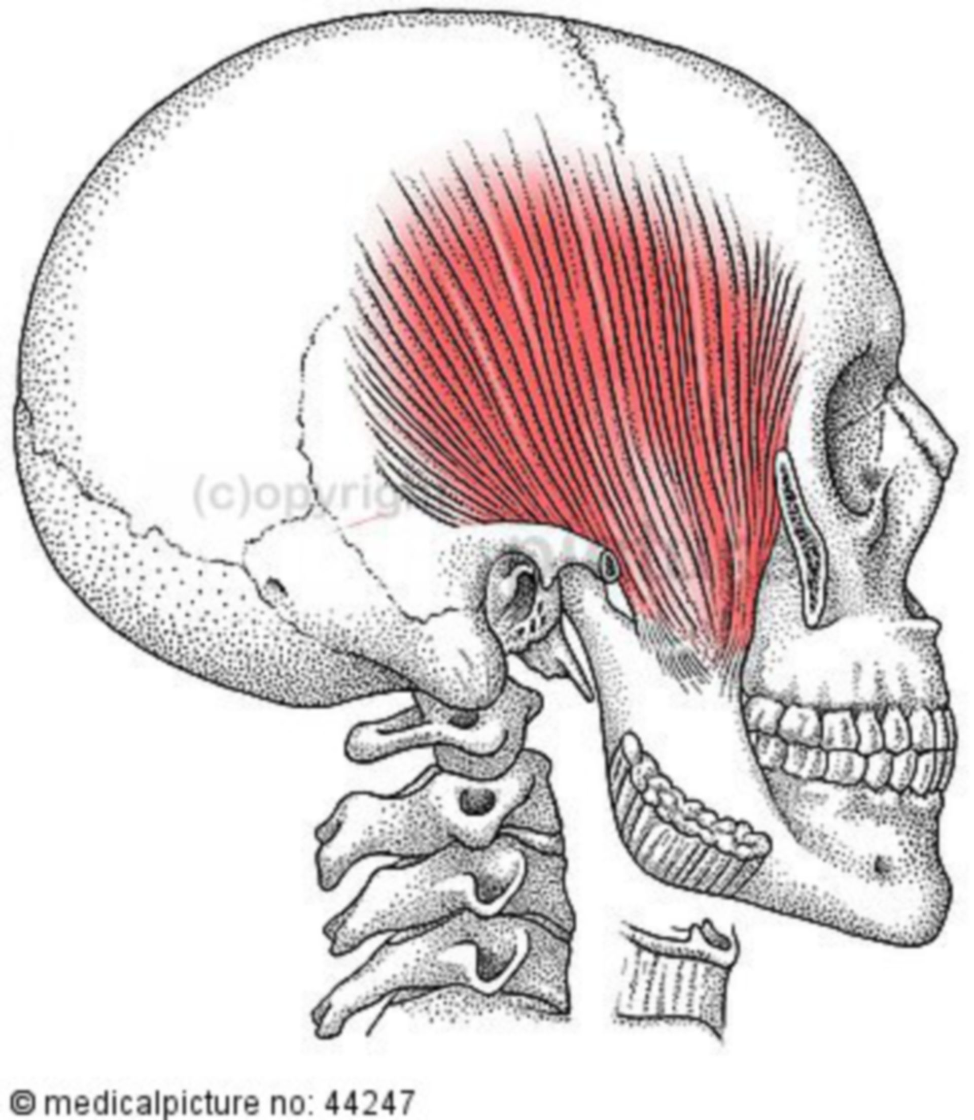 Cranium with Temporal Muscle