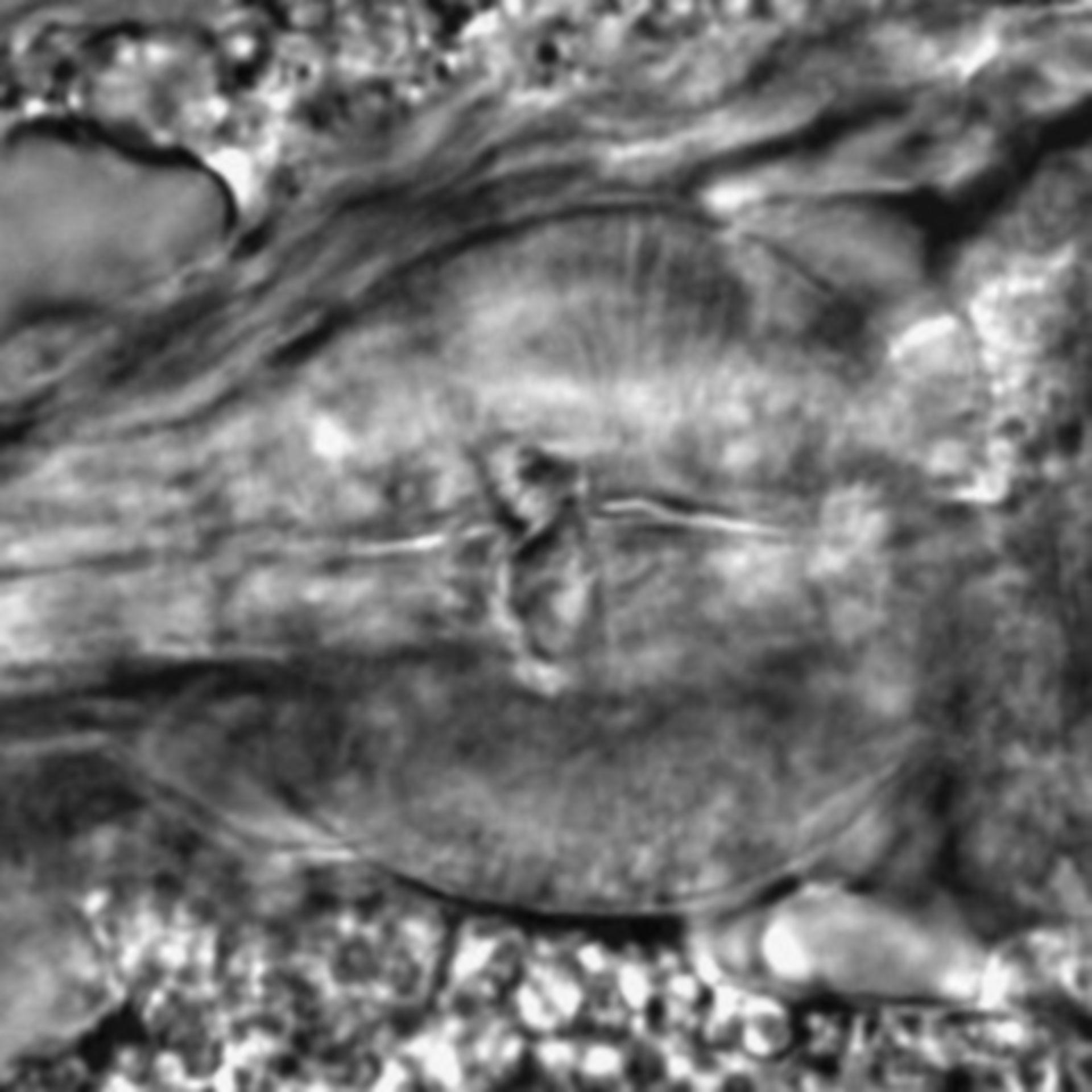 Caenorhabditis elegans - CIL:1771