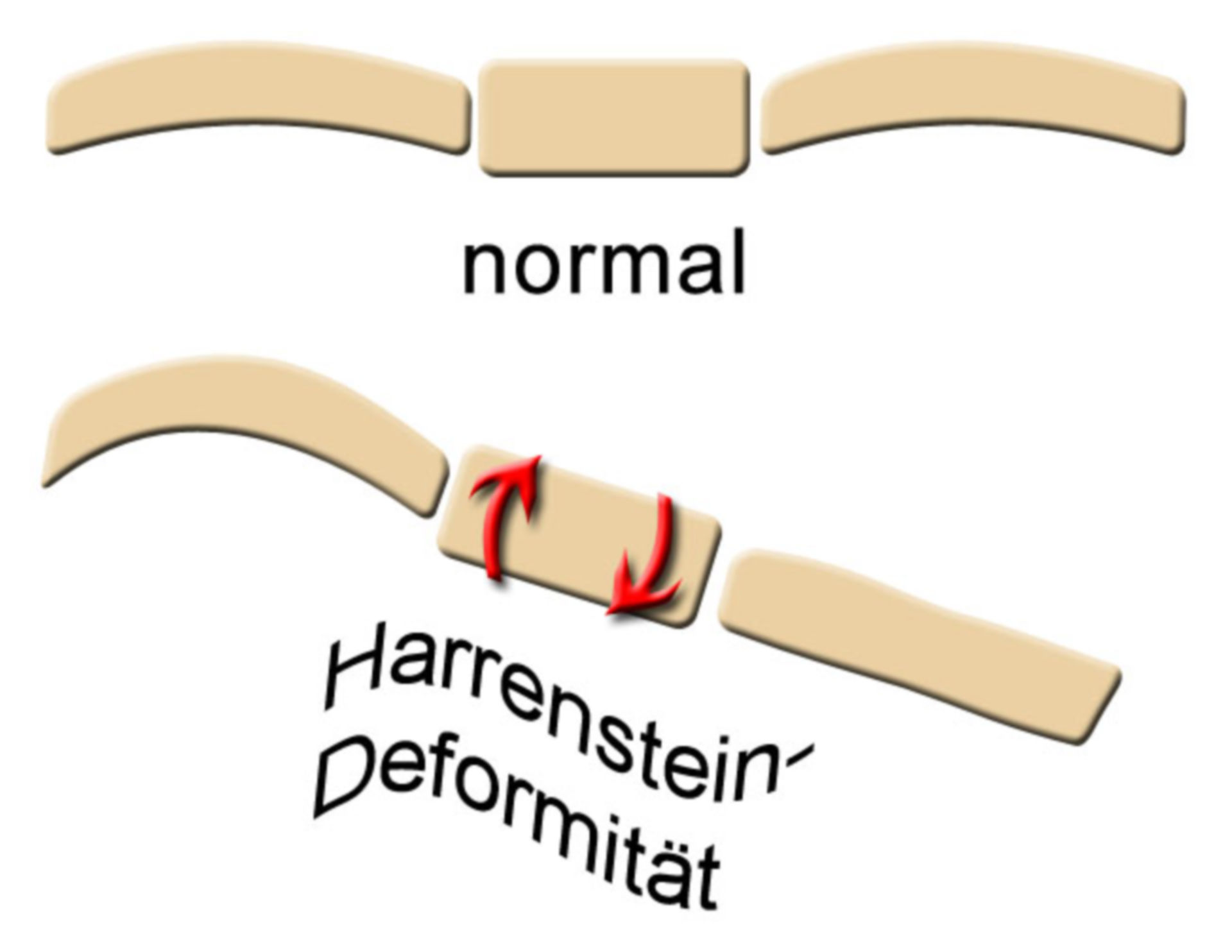 Harrenstein's deformity