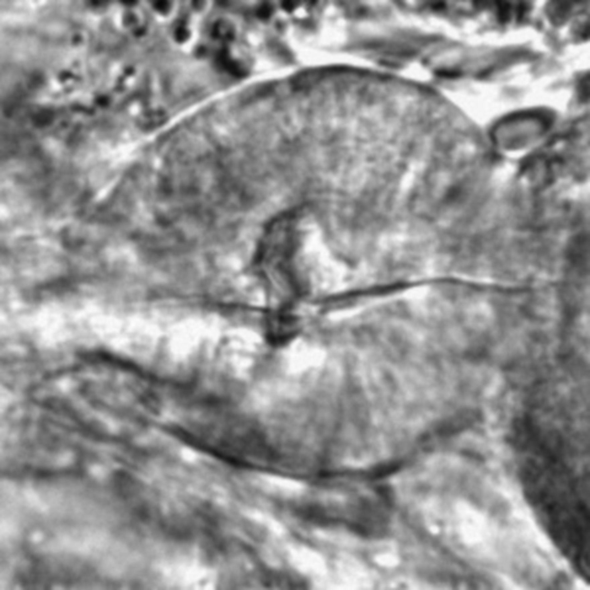 Caenorhabditis elegans - CIL:1763