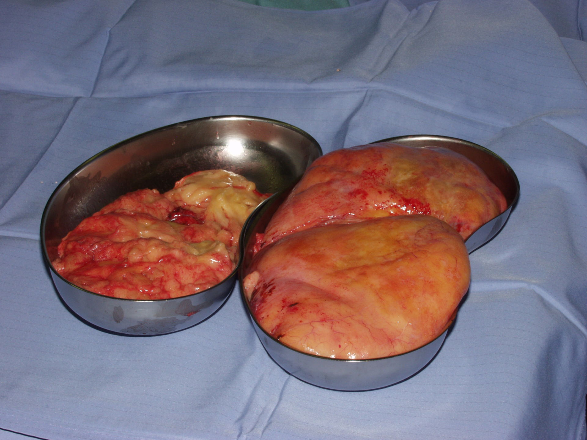 Resected lipoma