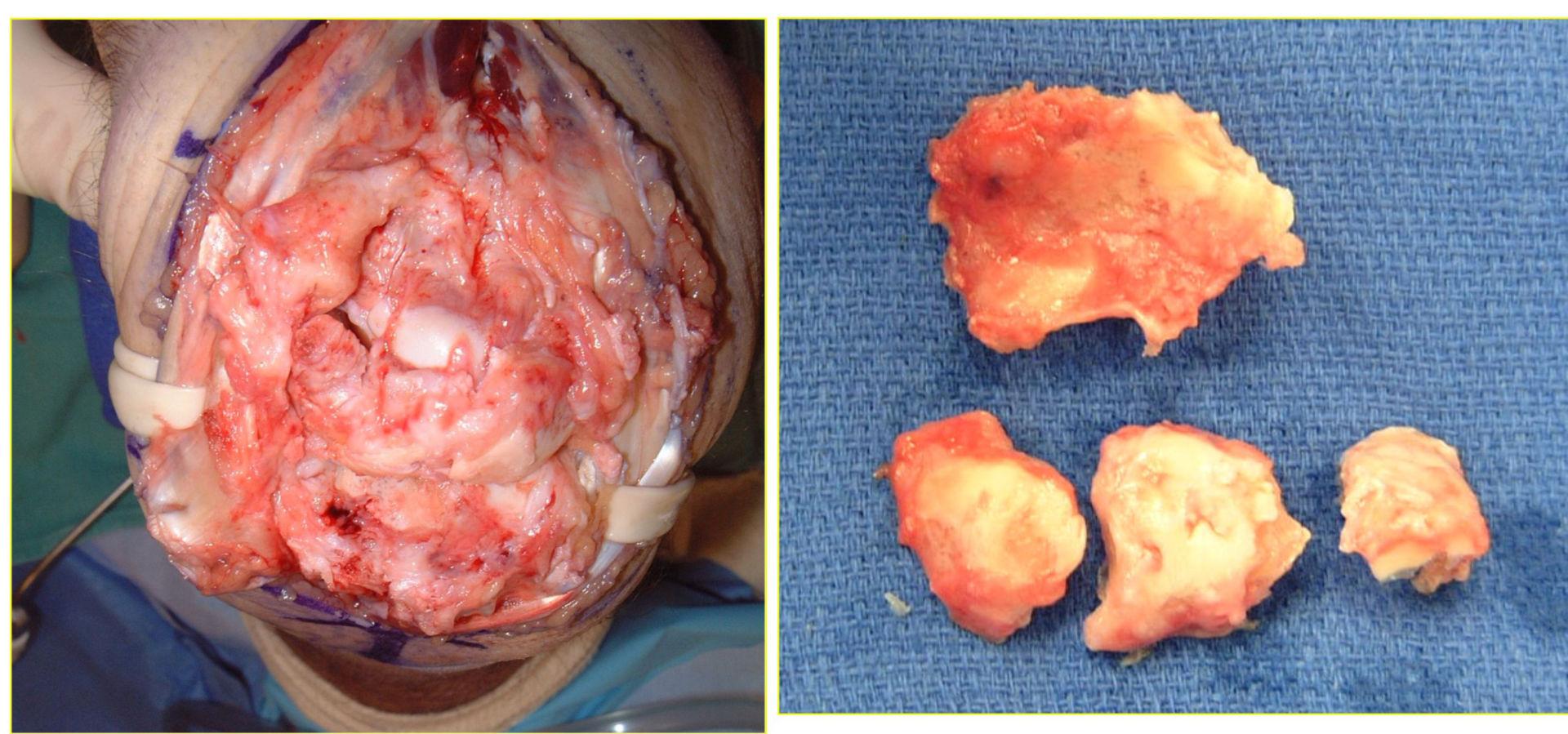 Artrite post-traumatica del polso