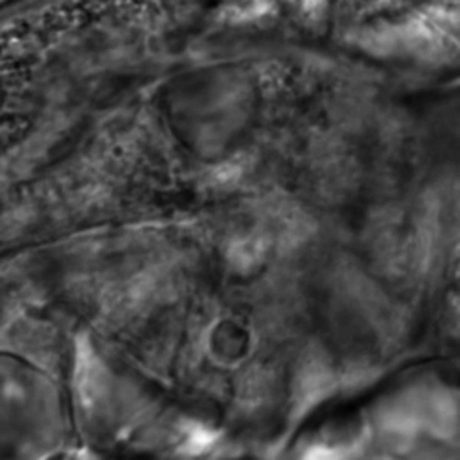 Caenorhabditis elegans - CIL:2647