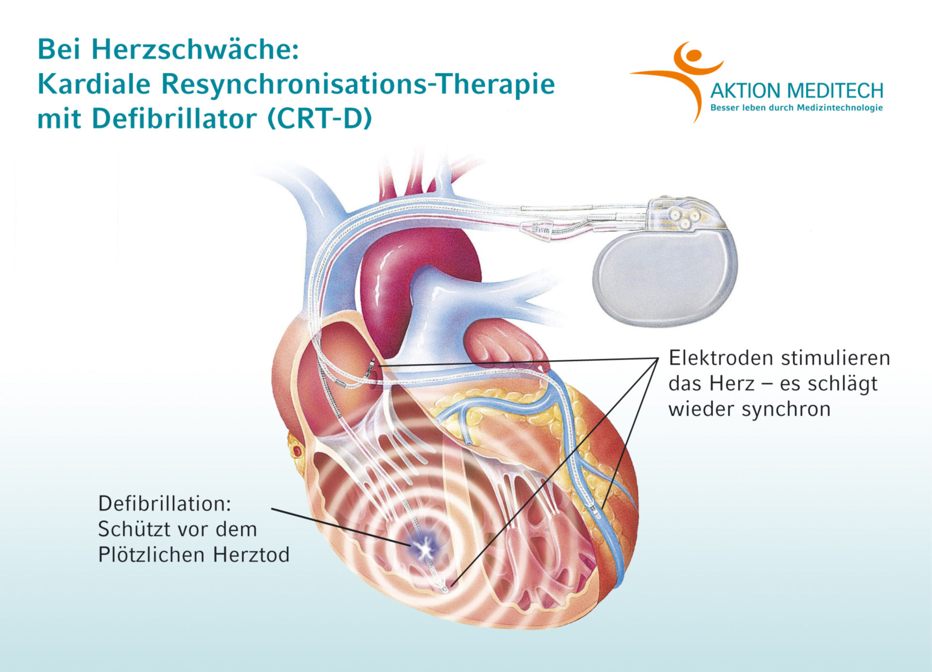 Cardiac resynchronization-therapy with integrated defibrillator (CRT-D)