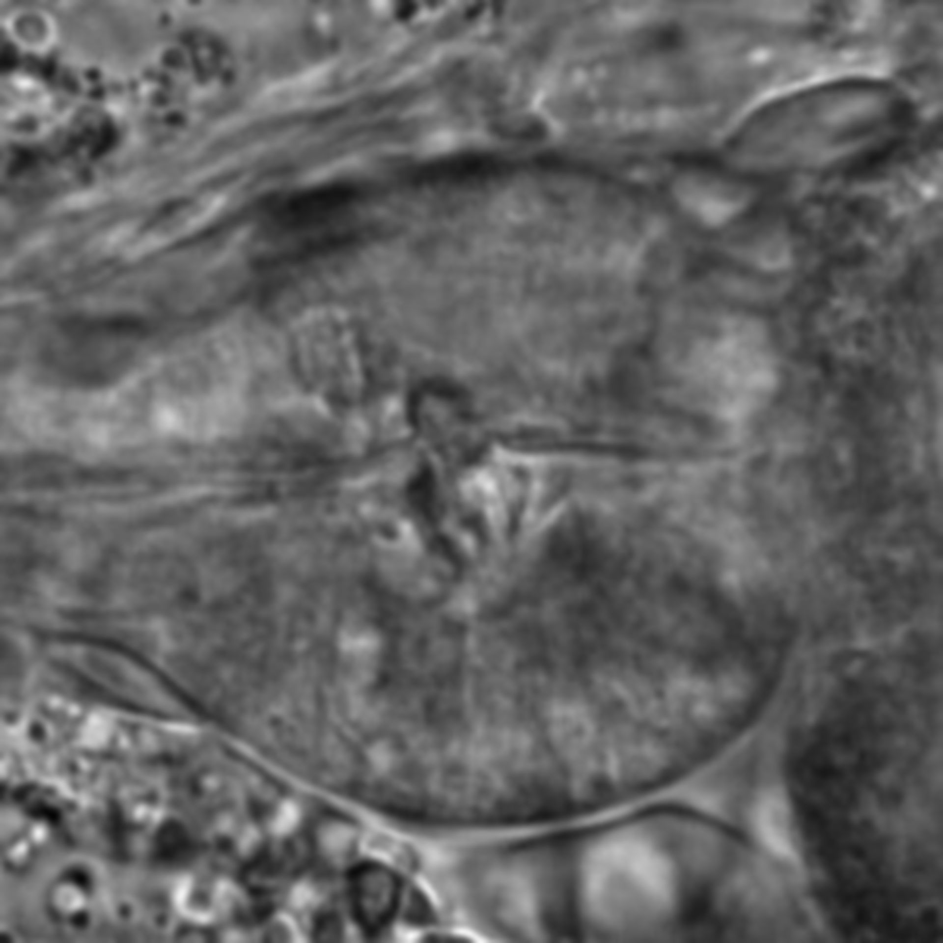 Caenorhabditis elegans - CIL:1764