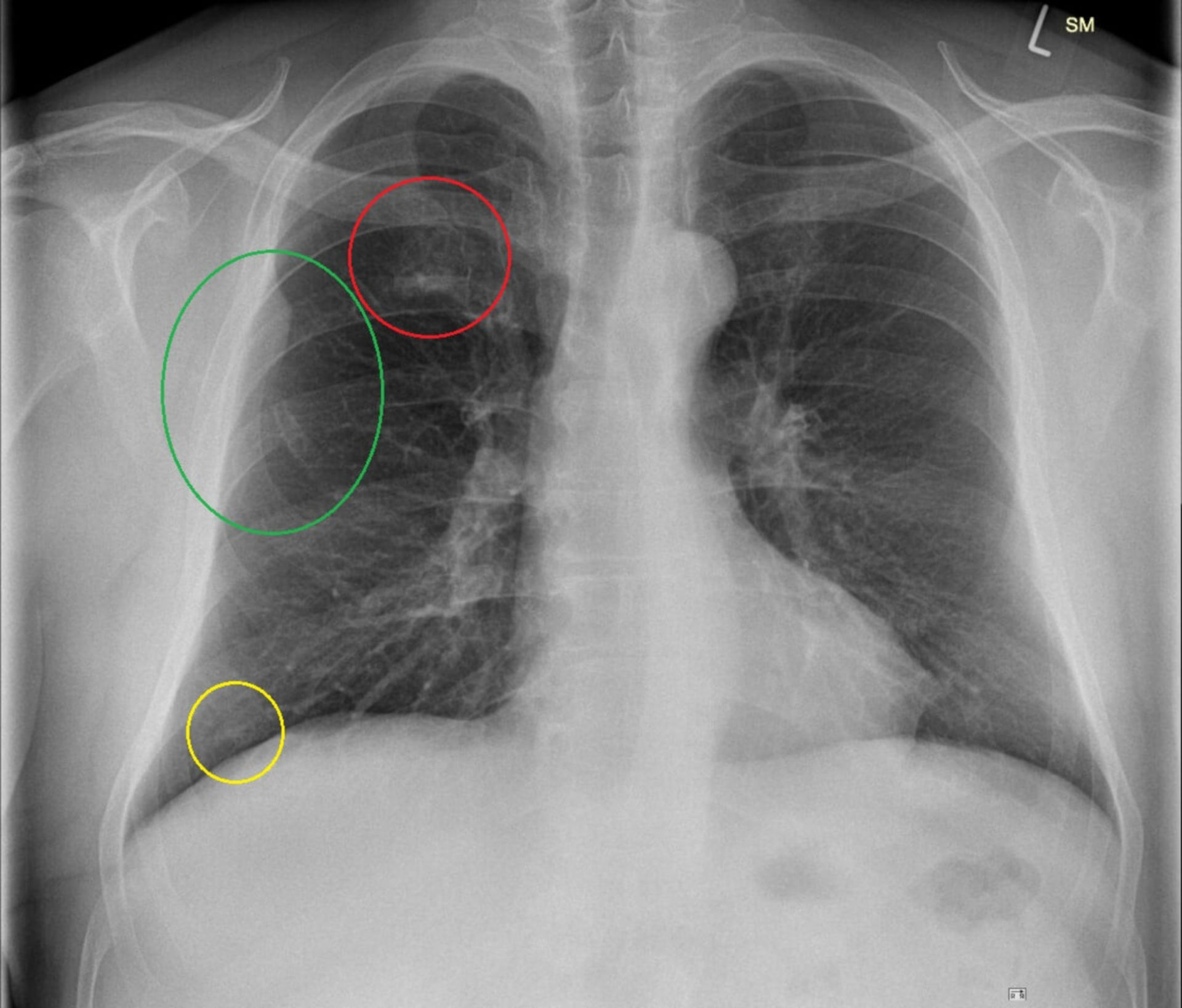 X-ray findings overview