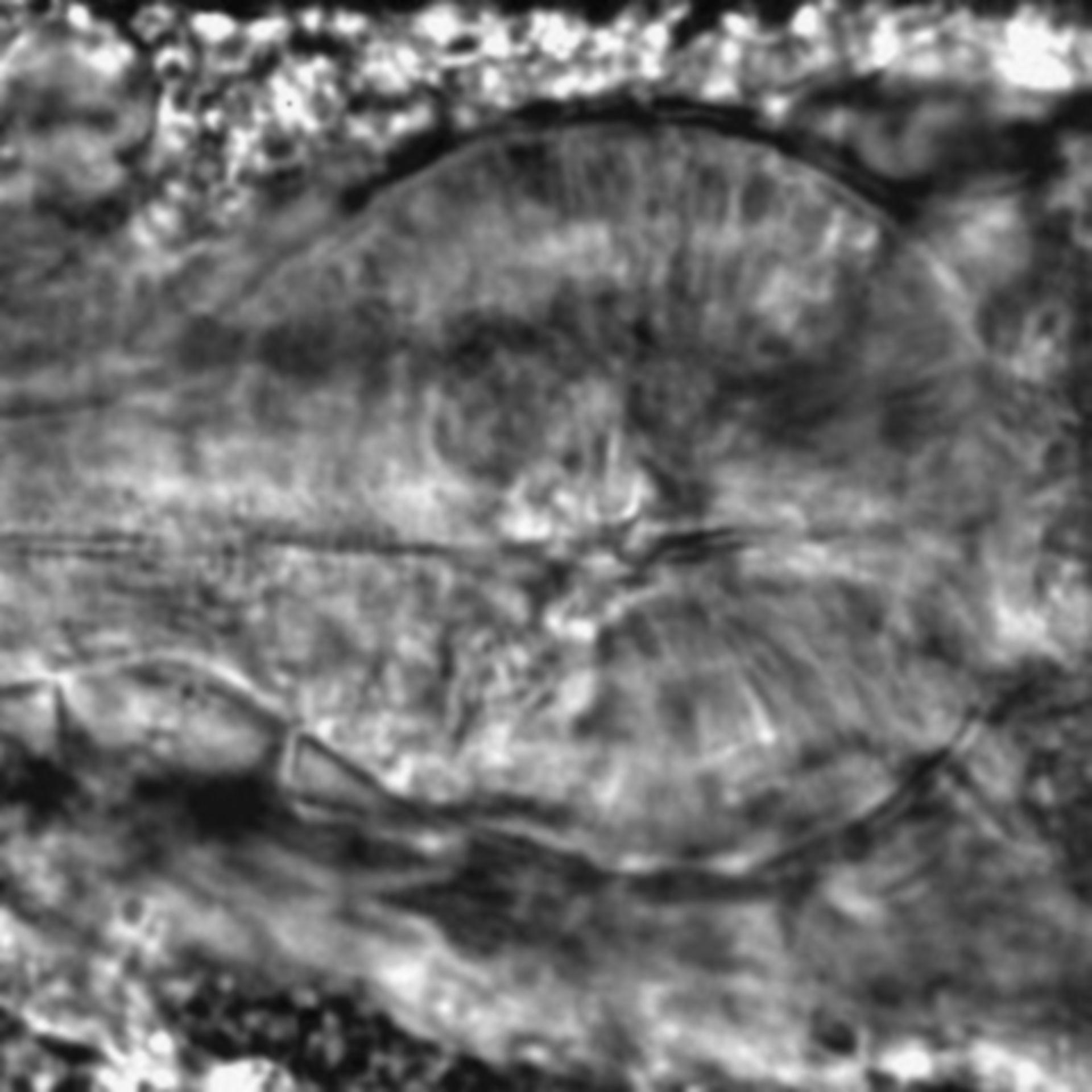 Caenorhabditis elegans - CIL:1993