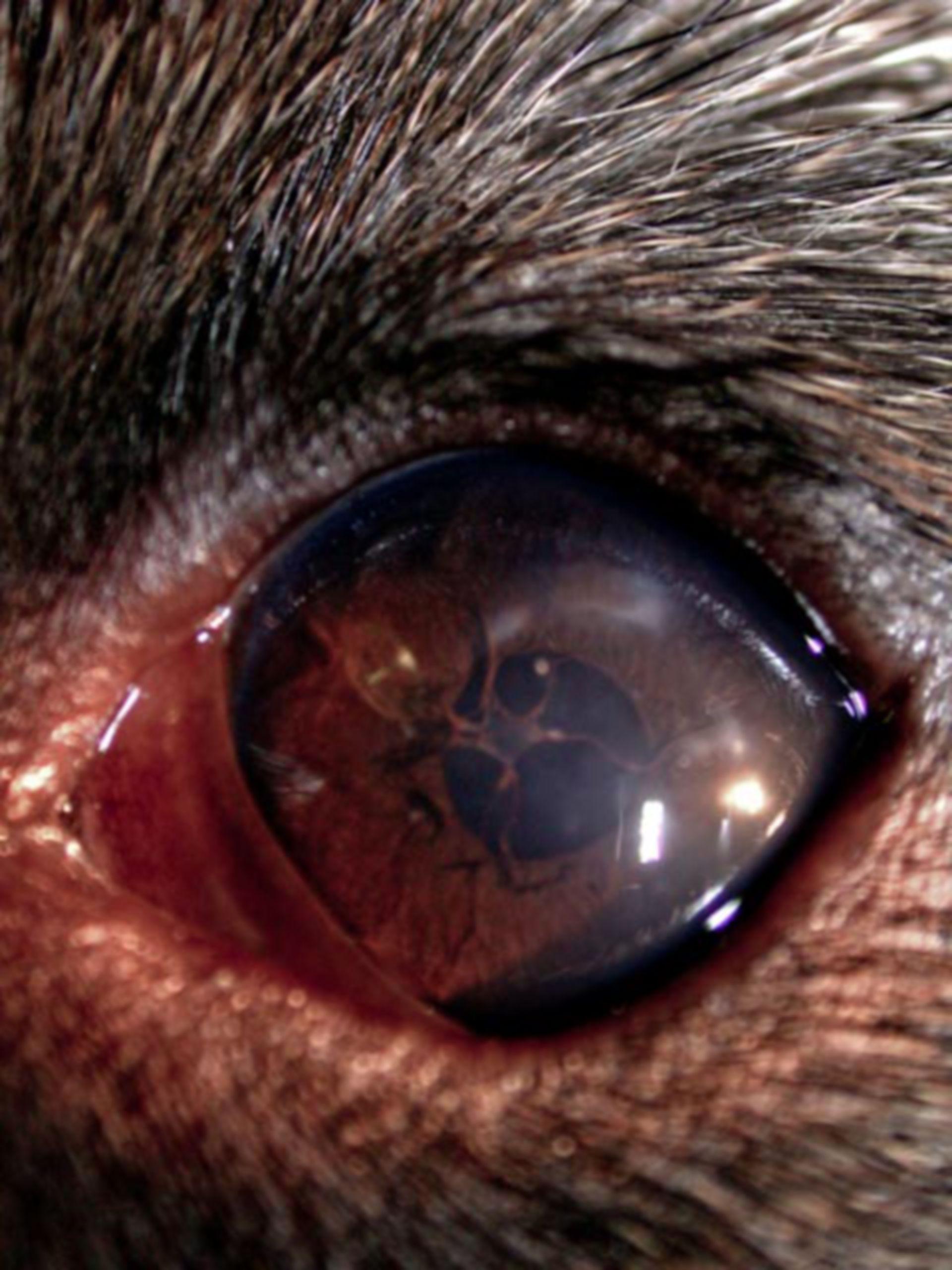Persistent pupillary membrane
