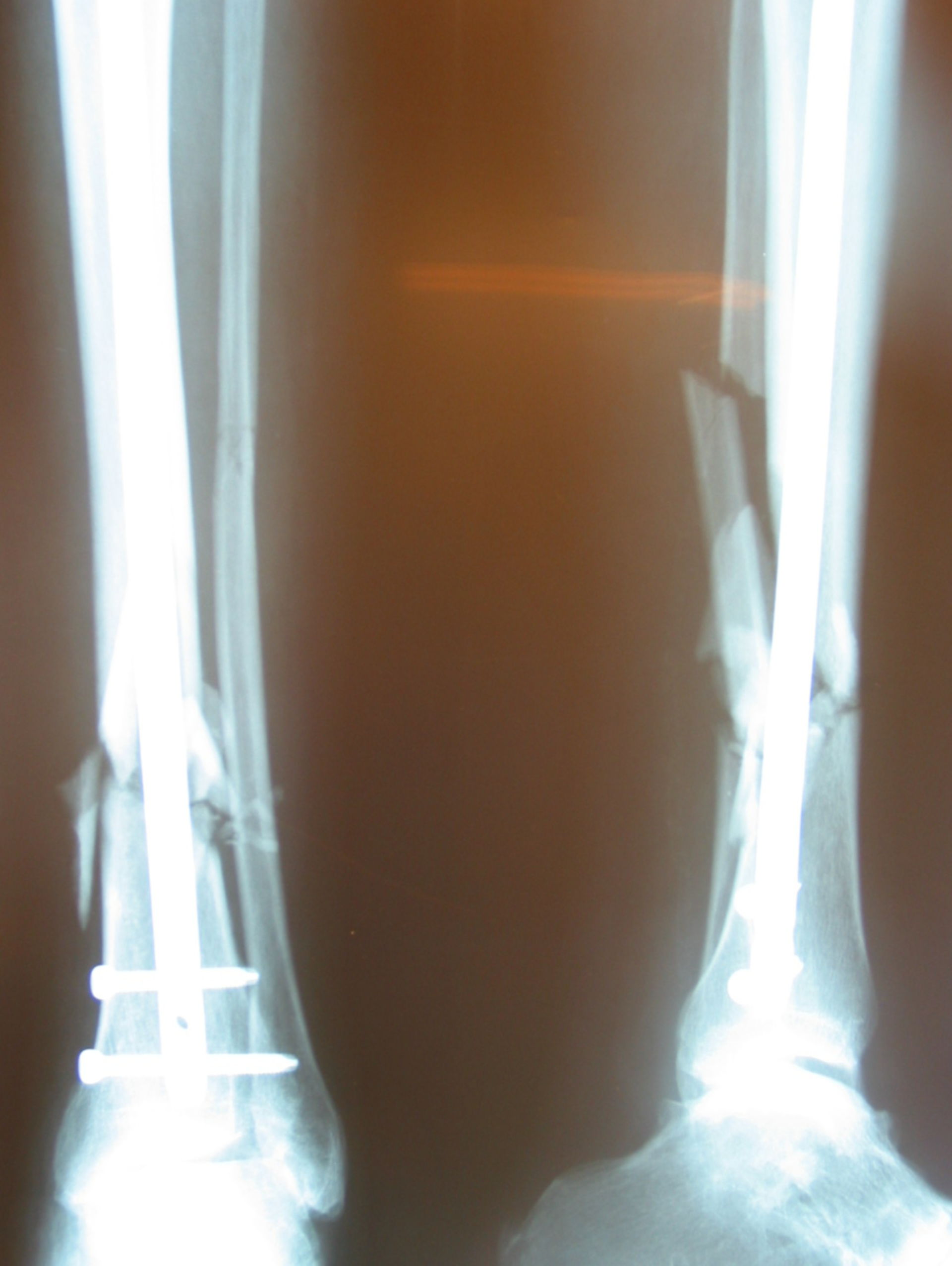 Nailing of lower leg fracture