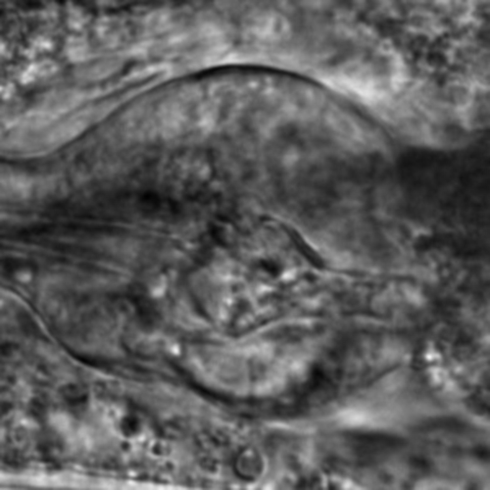 Caenorhabditis elegans - CIL:2777