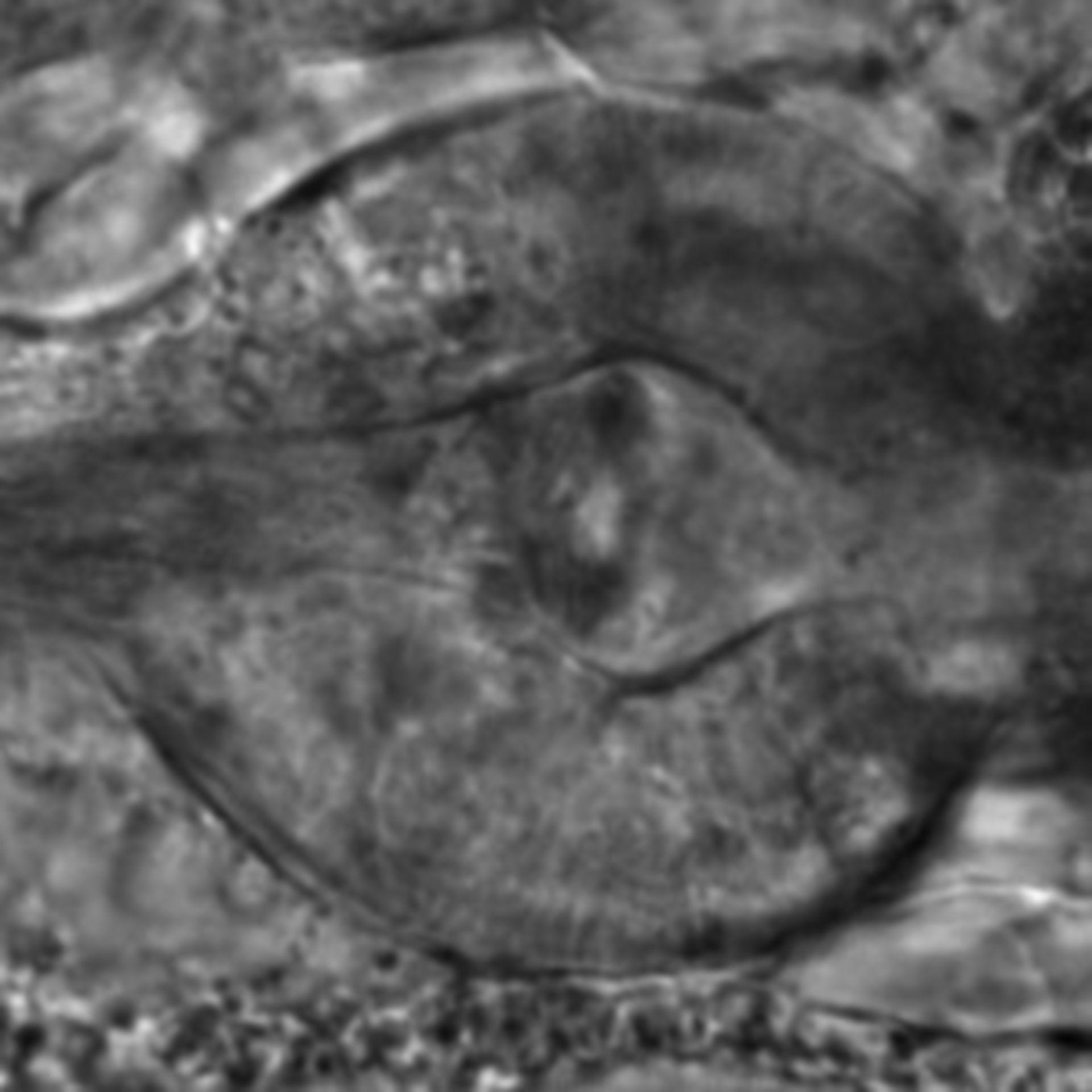 Caenorhabditis elegans - CIL:2550