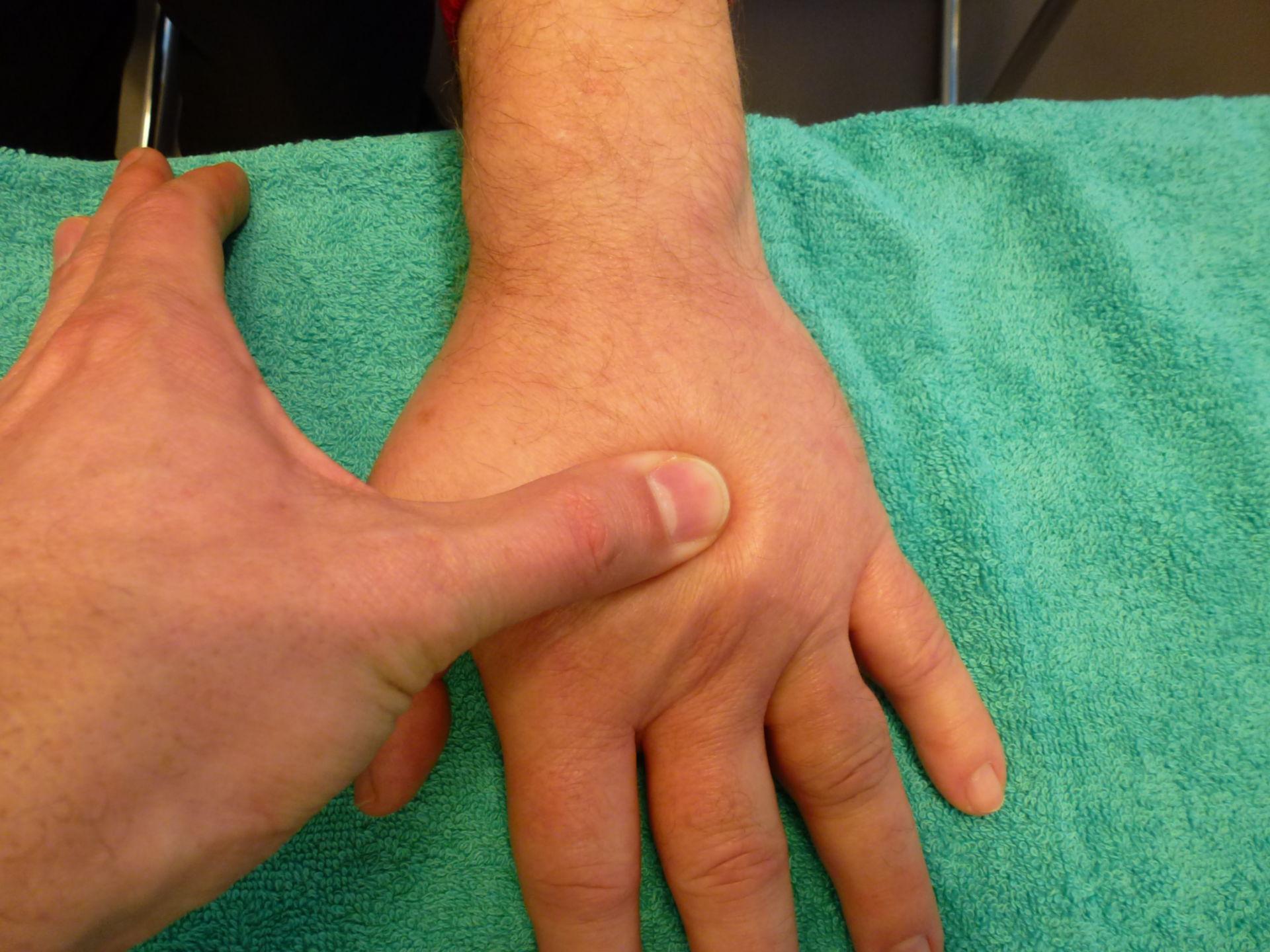 Pitting edema (2)
