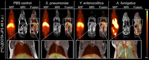 Rechts eine Mäuselunge, deren Befall mit dem Schimmelpilz A. fumigatus durch die Anreicherung der radioaktiv markierten Antikörper (helle Bereiche) sichtbar wird, wohingegen eine mit dem bakteriellen Erreger Yersinia enterocolitica infizierte Lunge (links) keinerlei Anreicherung im Lungengewebe zeigt. © Werner Siemens Imaging Center