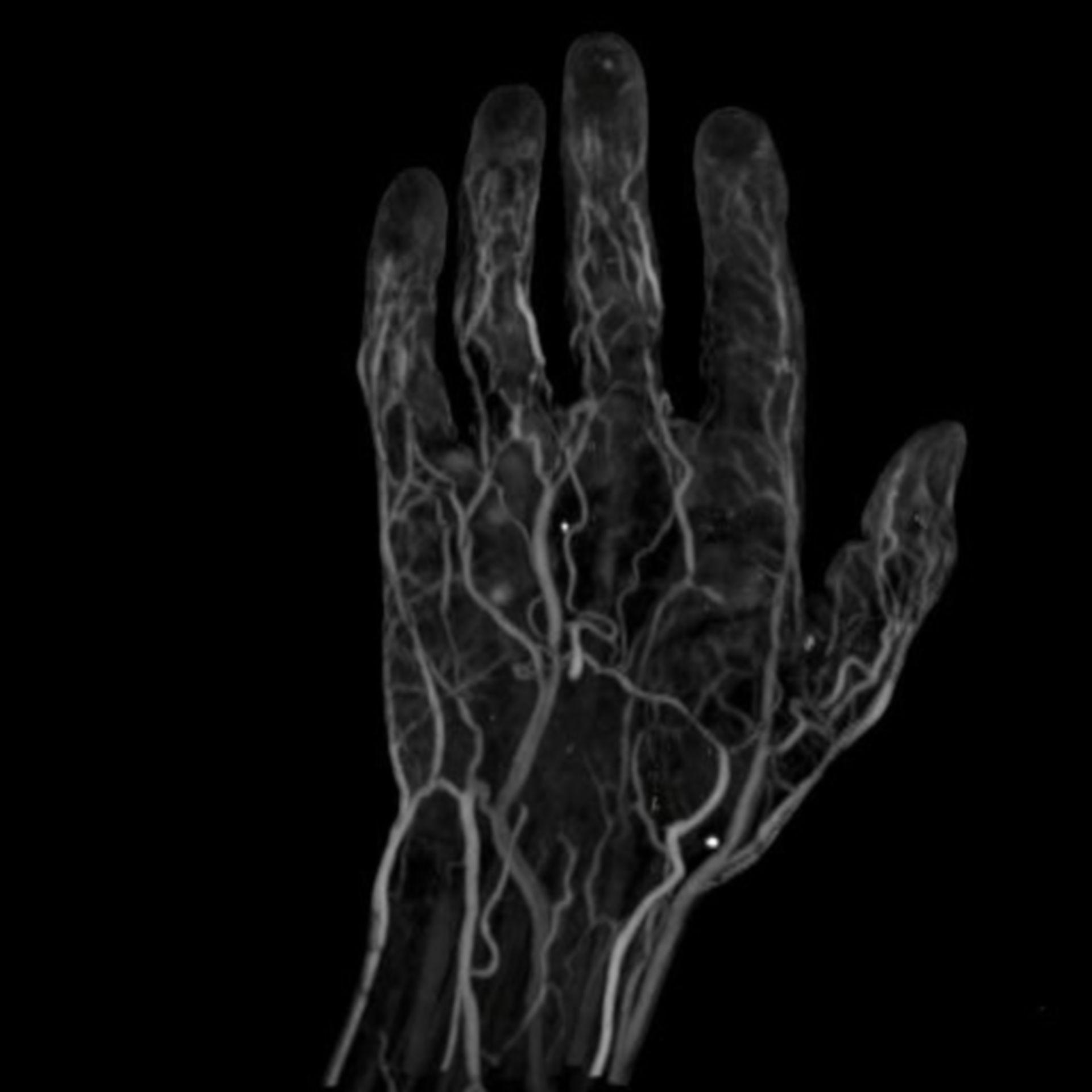Angiografia della mano
