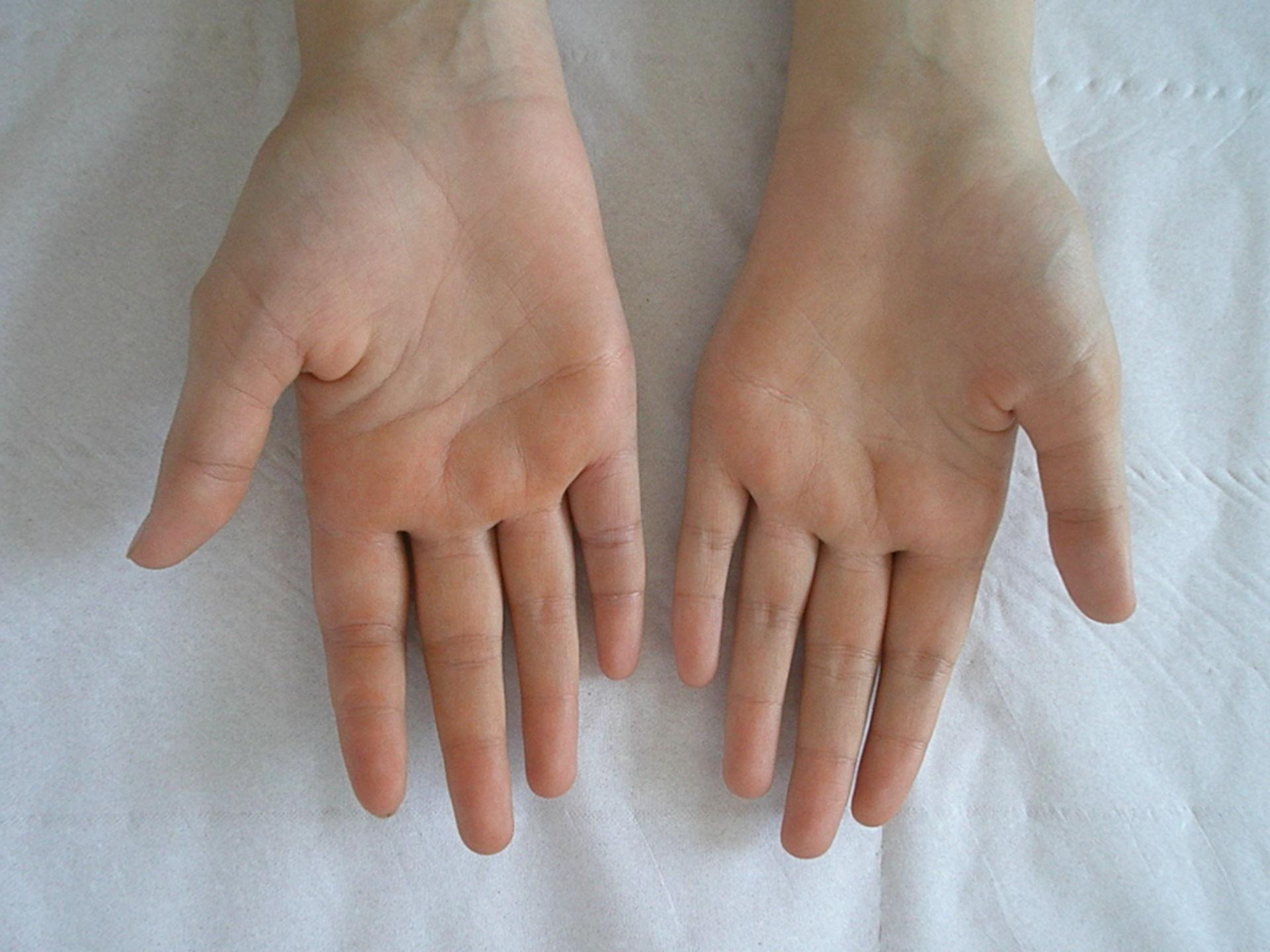 Orange gefärbte Haut nach Rifampicingabe