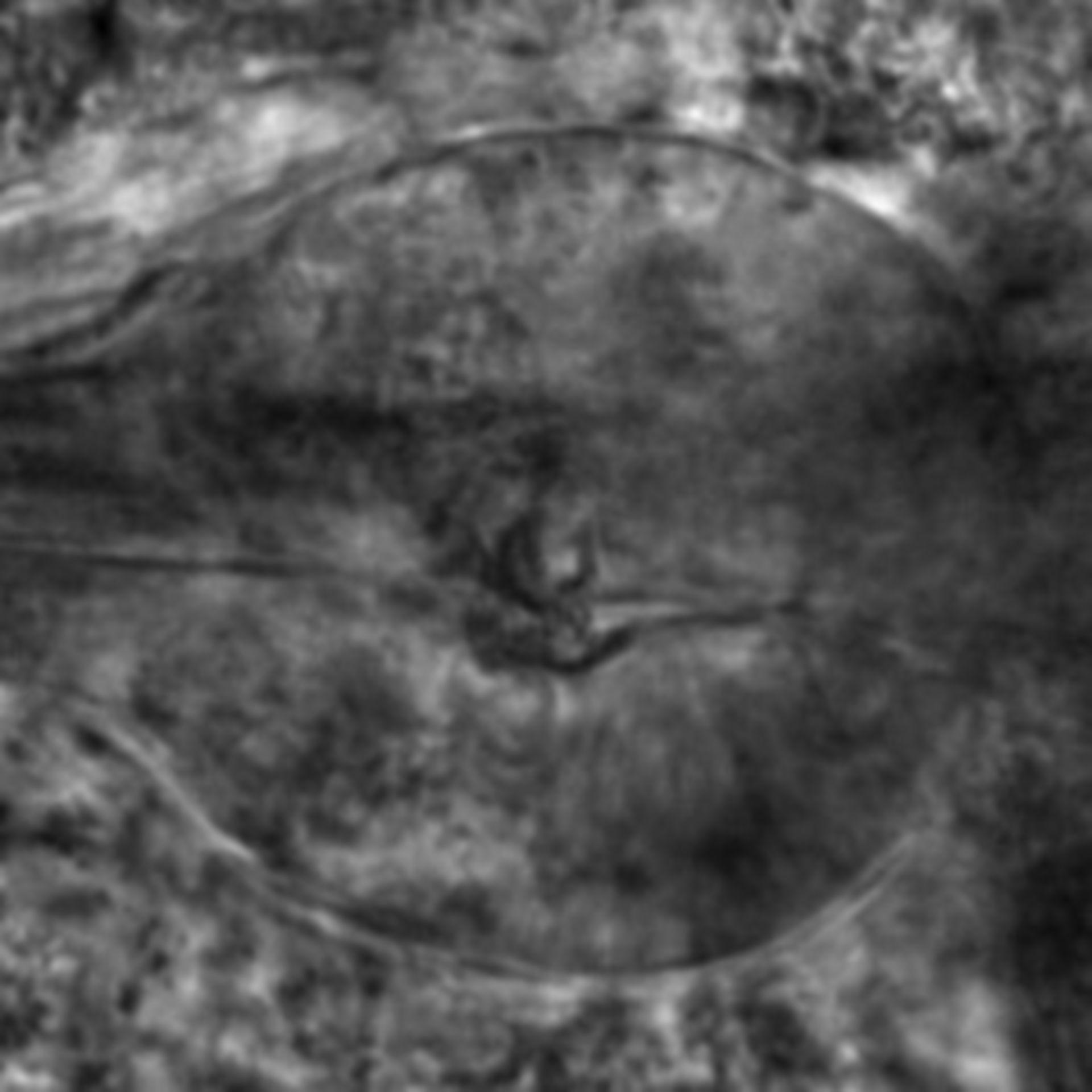 Caenorhabditis elegans - CIL:2313
