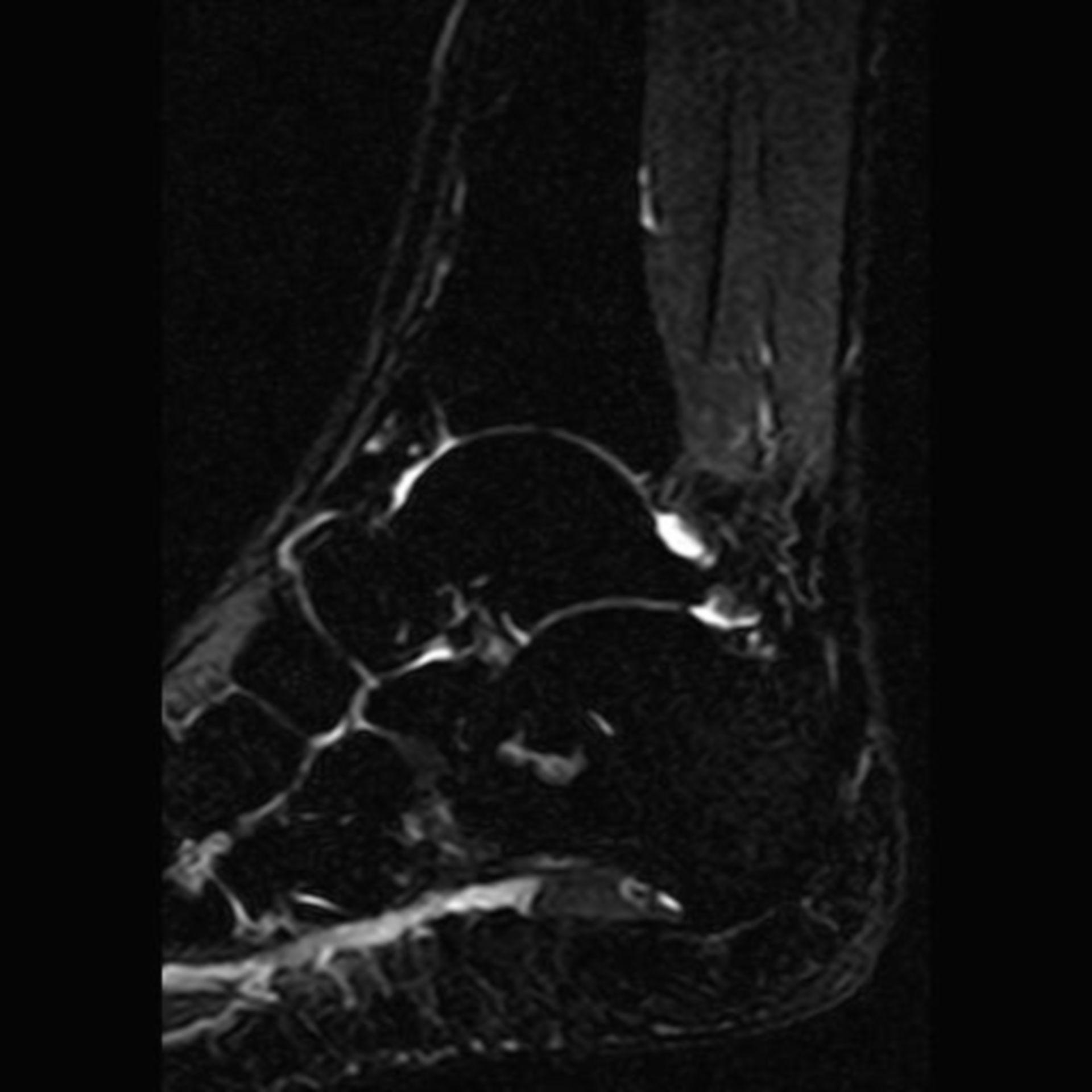 IRM del calcaneo STIR sag S3 I8