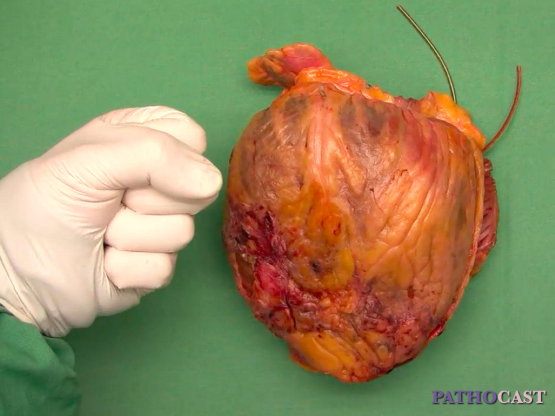 Cardiopatía dilatada