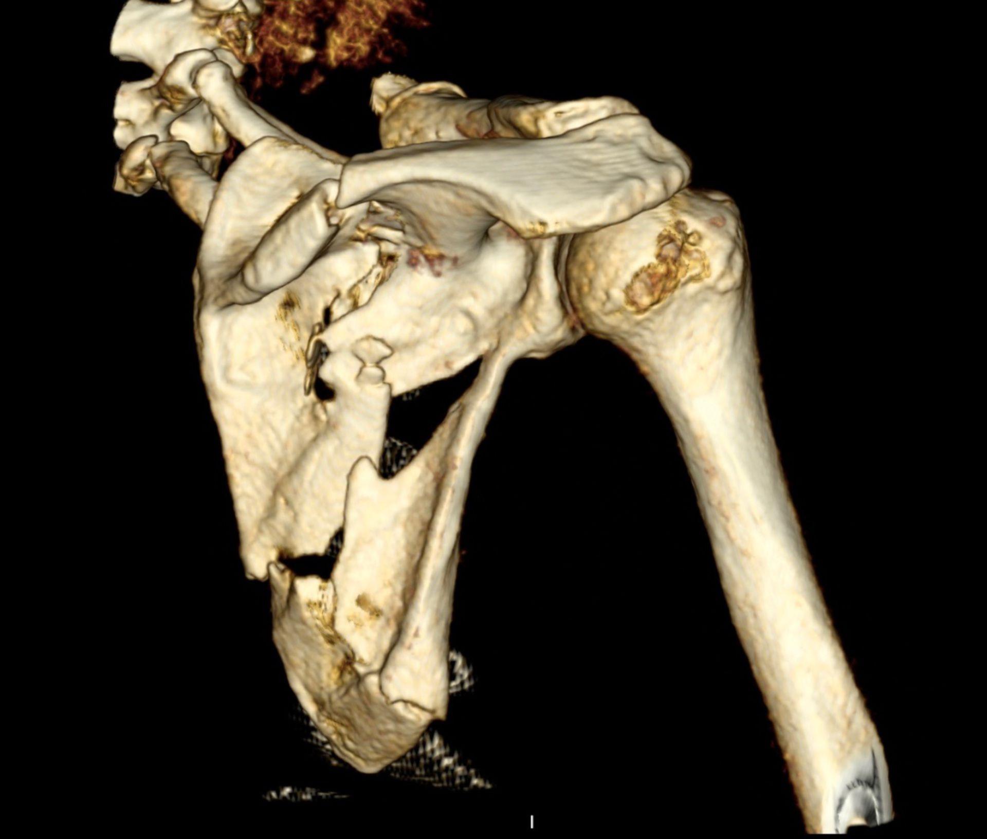 3D-Rekonstruktion einer CT des Schultergürtels mit Scapulatrümmerfraktur