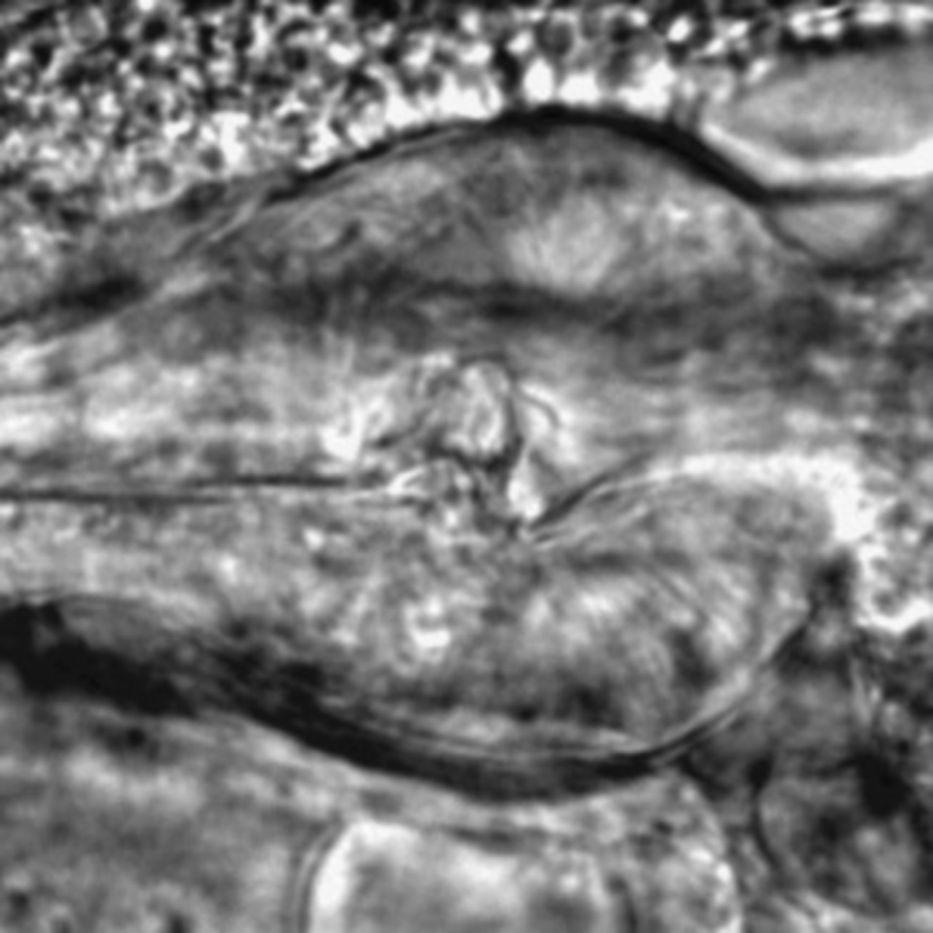 Caenorhabditis elegans - CIL:2186