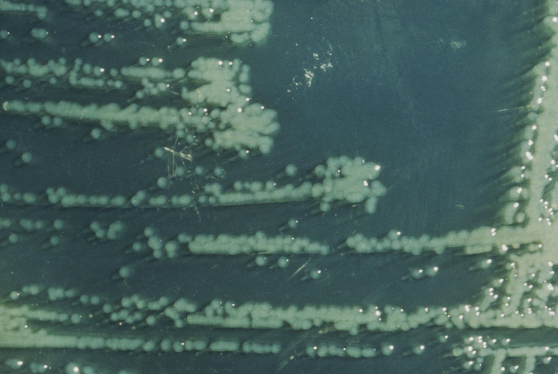 Yersinia enterocolitica (HE-Agar)