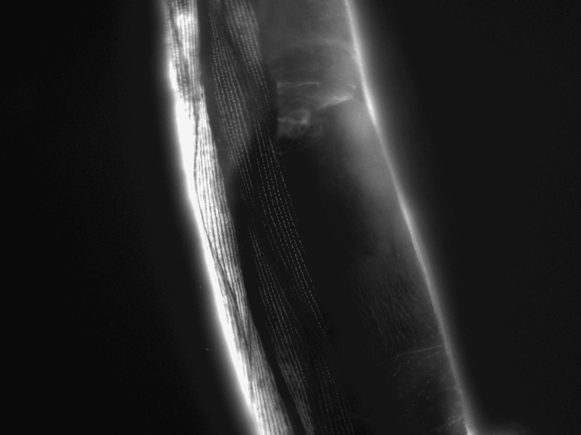 Caenorhabditis elegans (Actin filament) - CIL:1190