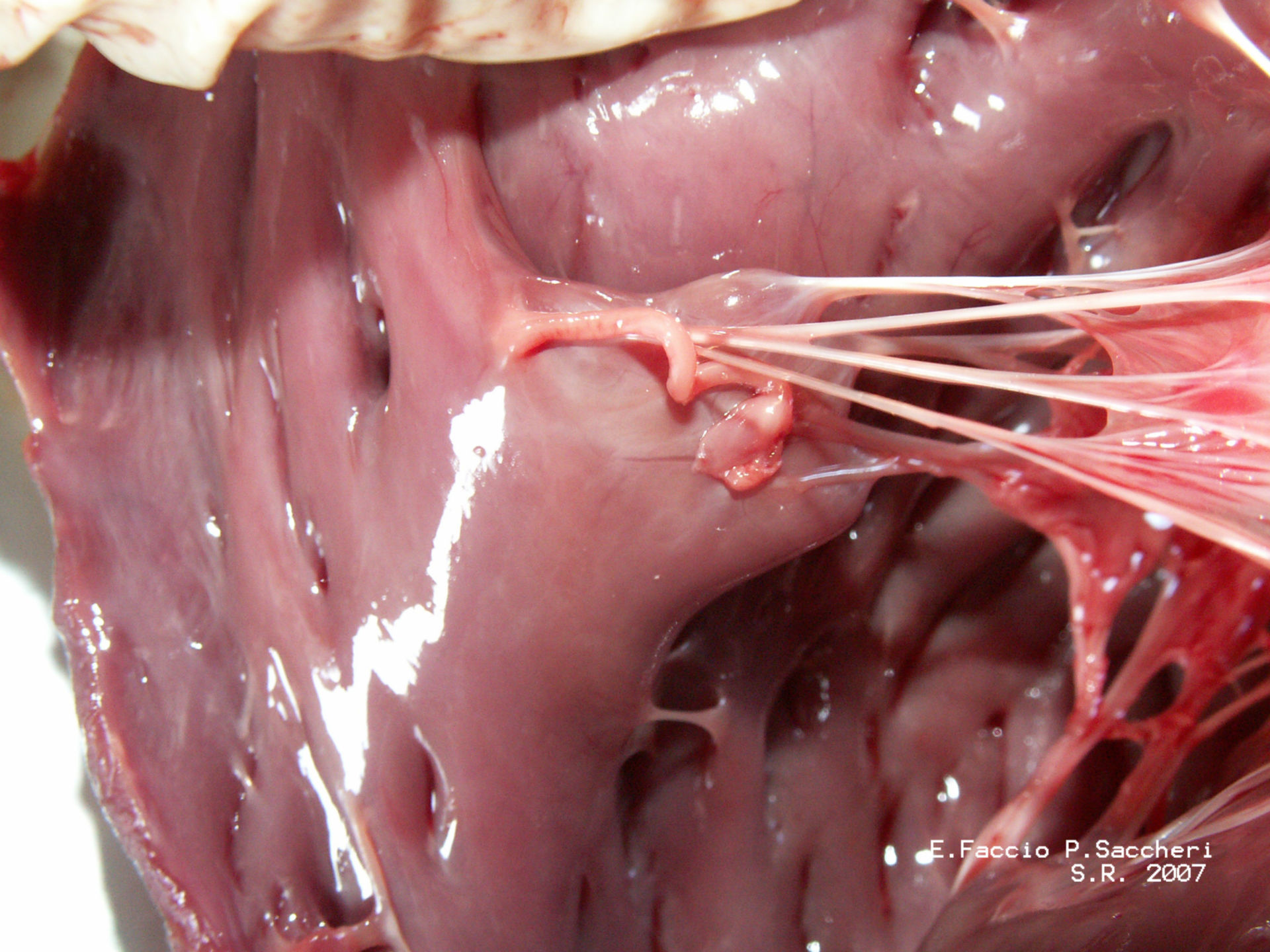 Papillary muscles and Chordae tendineae (2)