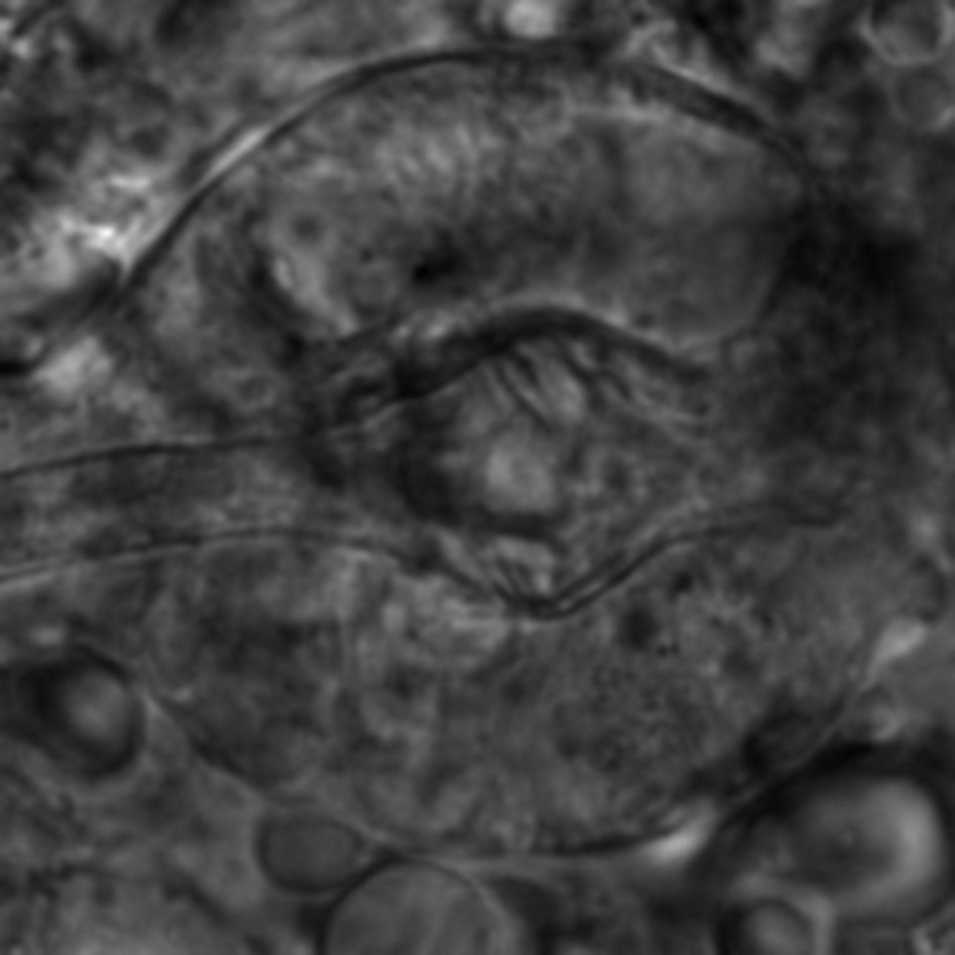 Caenorhabditis elegans - CIL:2624