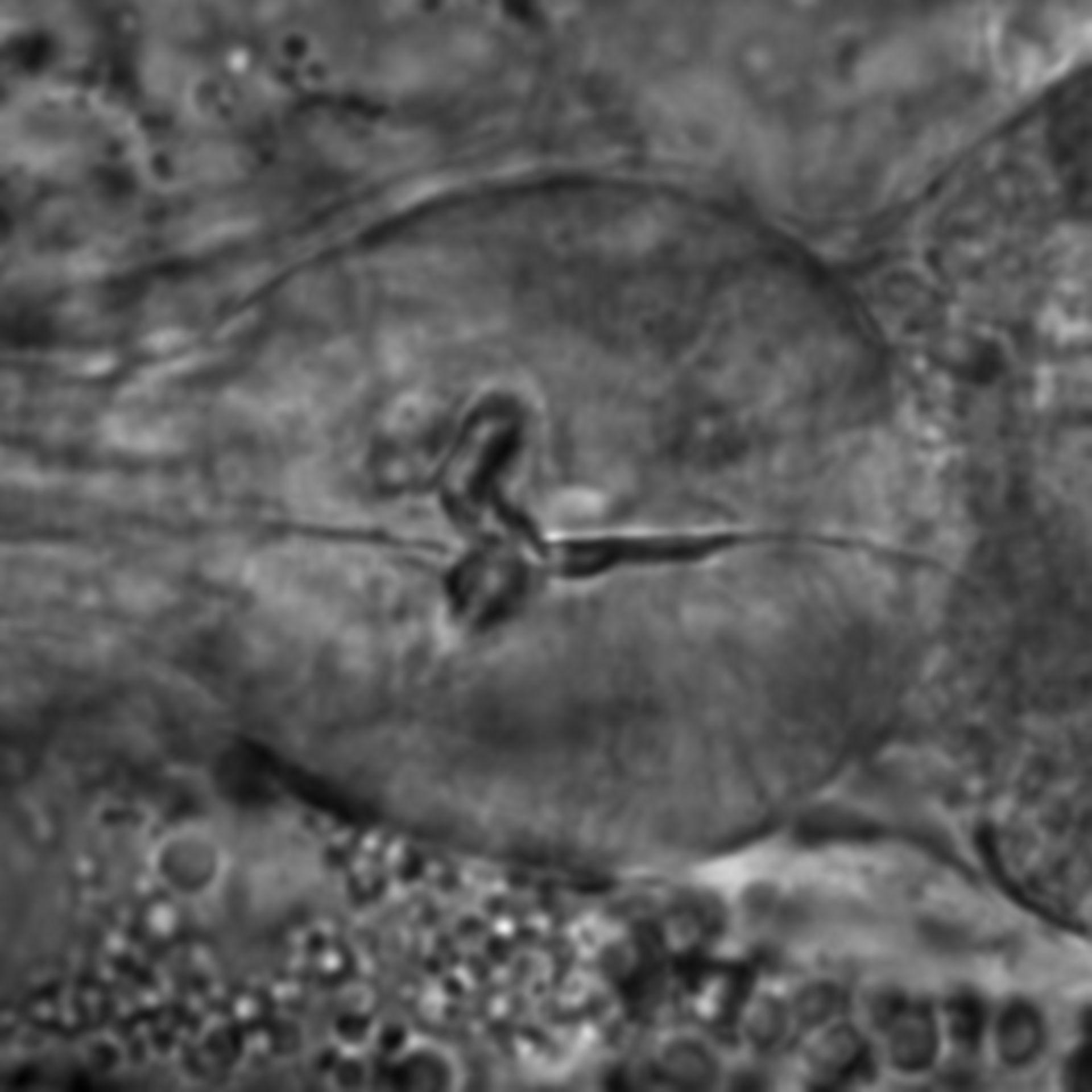 Caenorhabditis elegans - CIL:1741