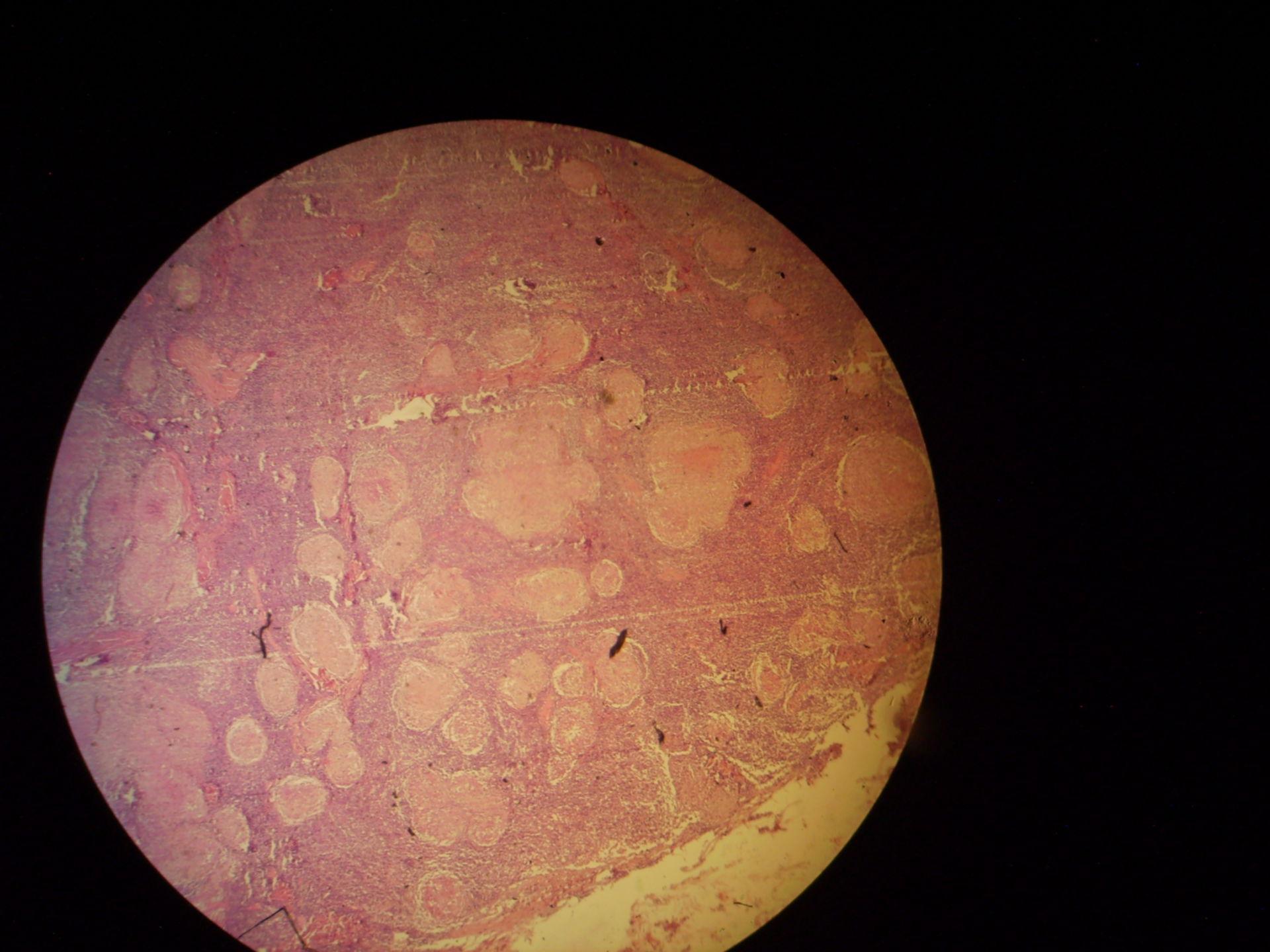 Produktive Lymphknotentuberkulose (1)