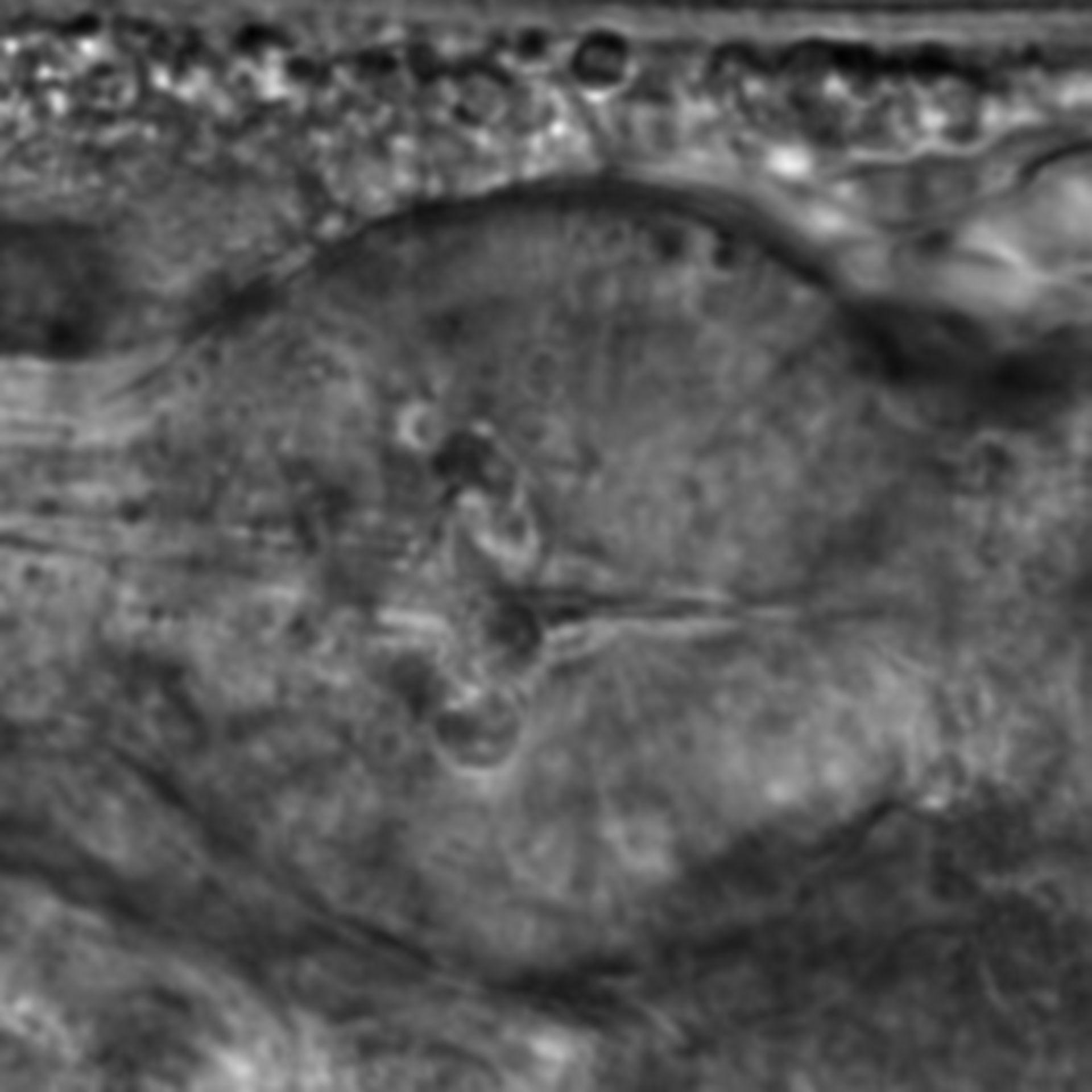 Caenorhabditis elegans - CIL:1941