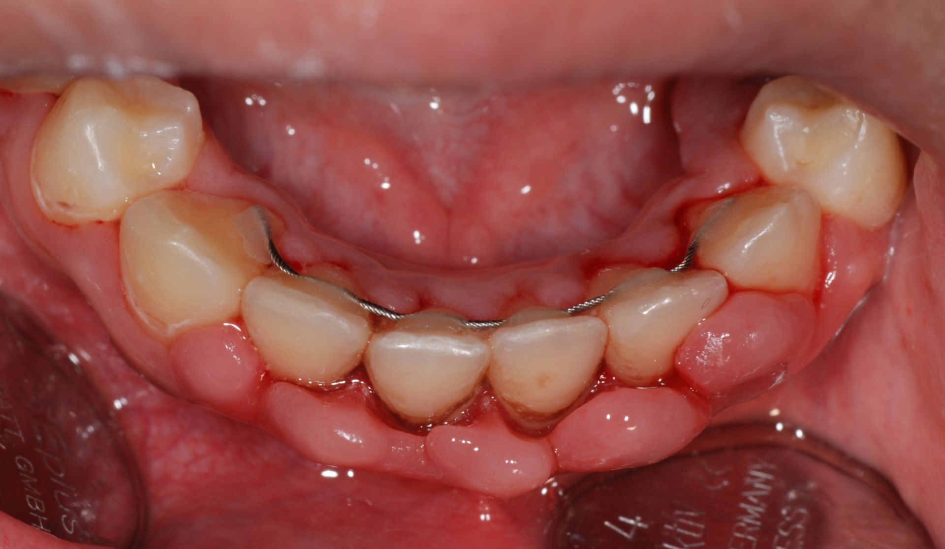 Gingival hyperplasia, lower jaw, front