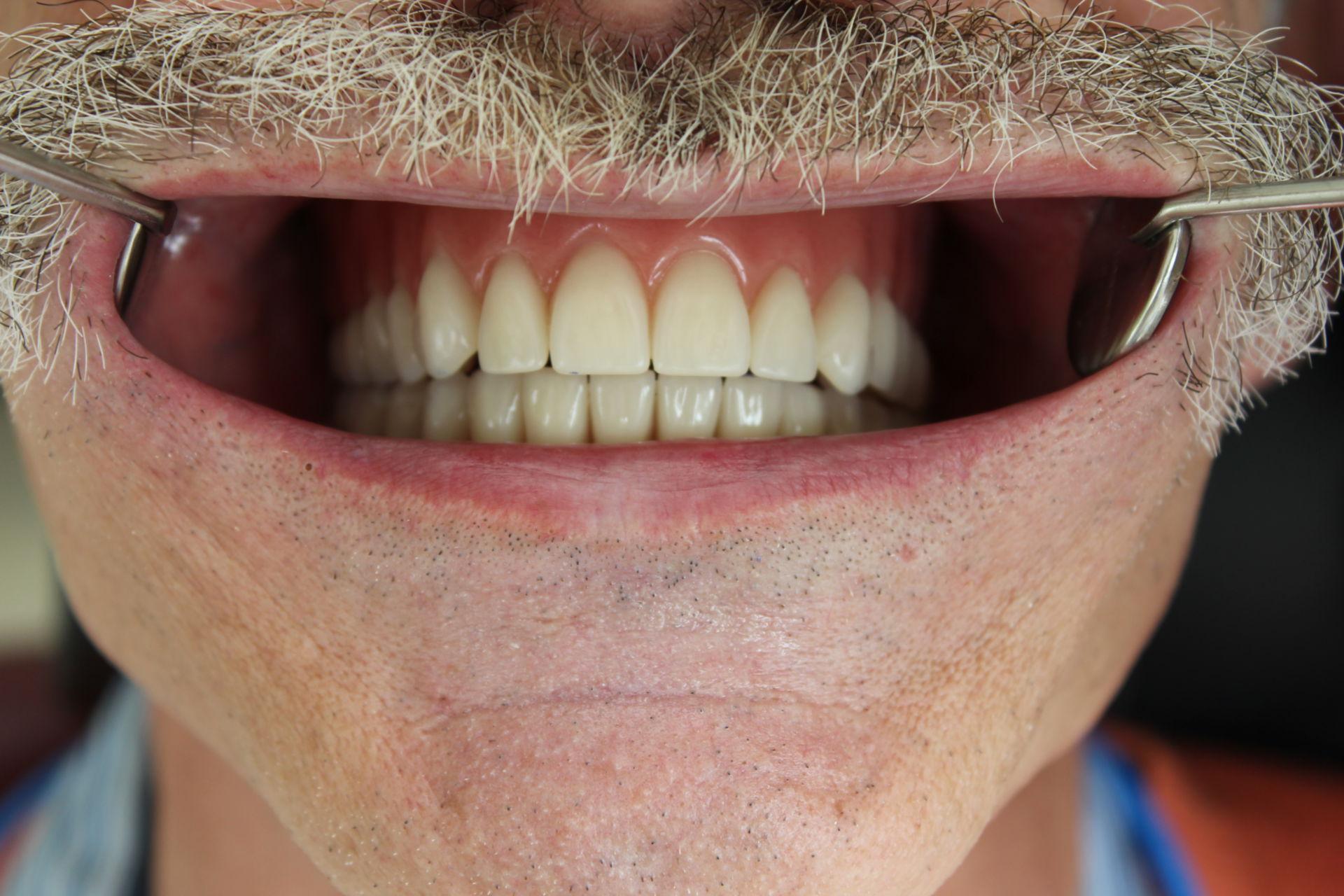 Protesi impianto dentale