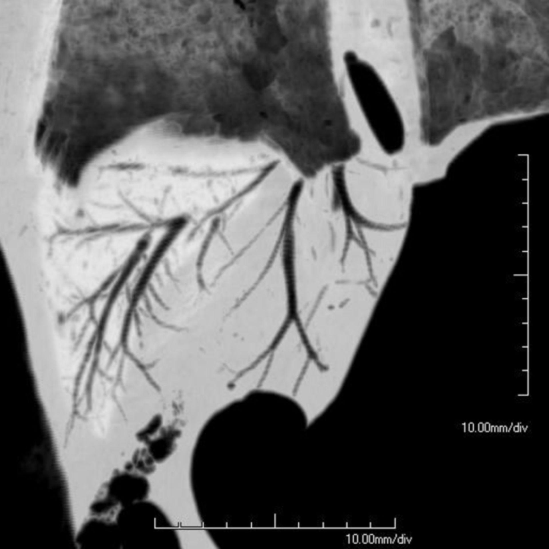 CT 9 Stunden nach tödlichen Tauchunfall (2)