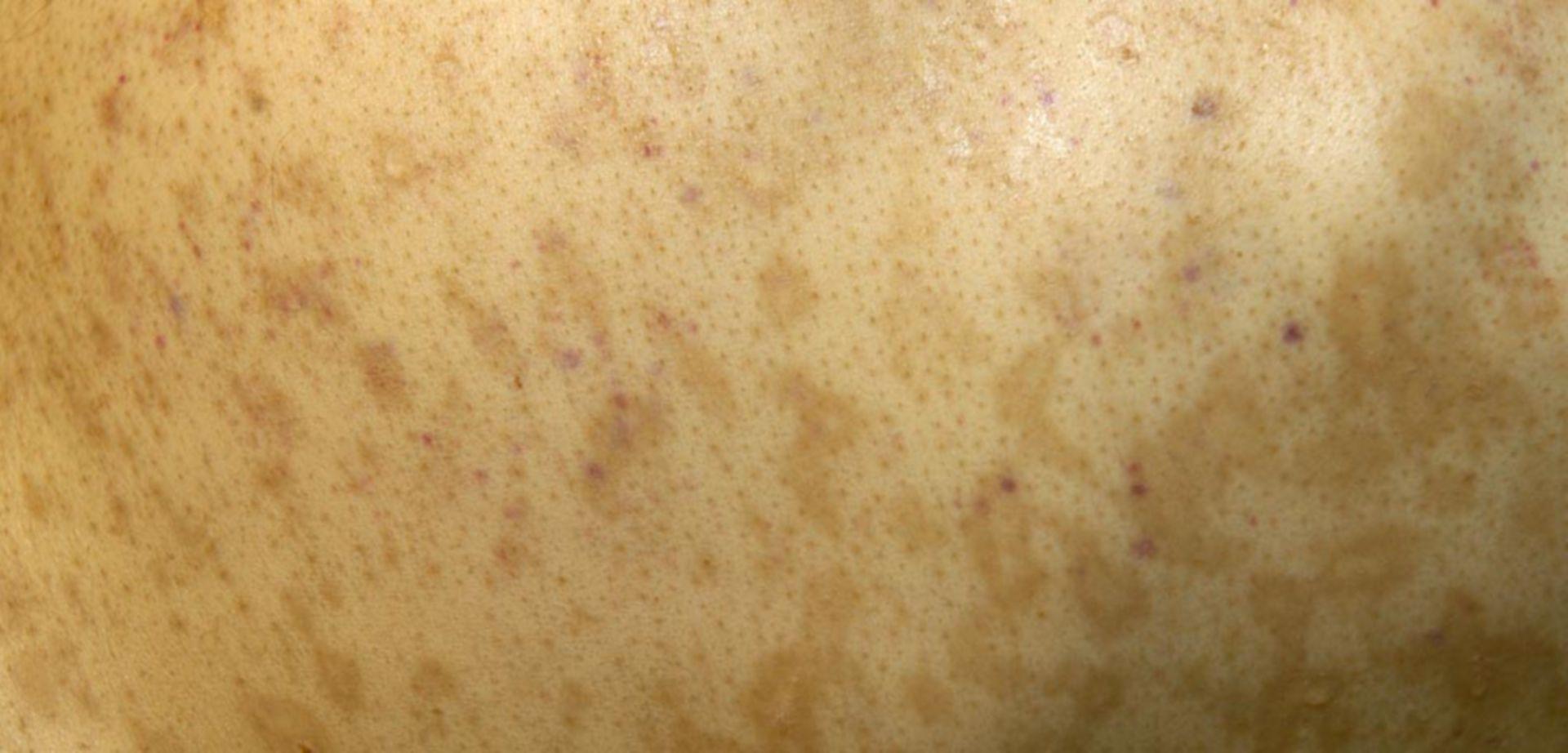 Akute Graft-versus-Host-Erkrankung der Haut