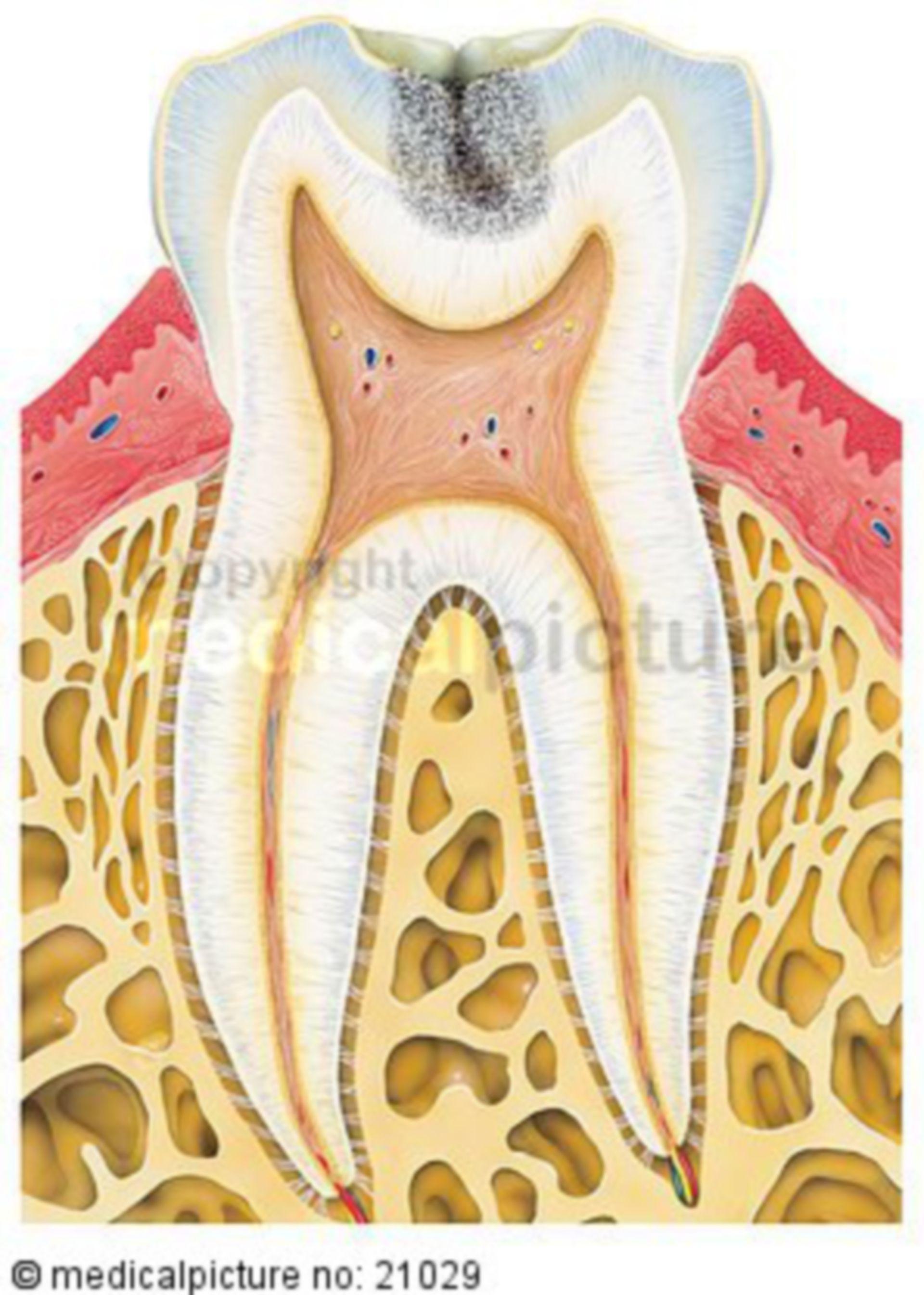 Karies befallener Zahn