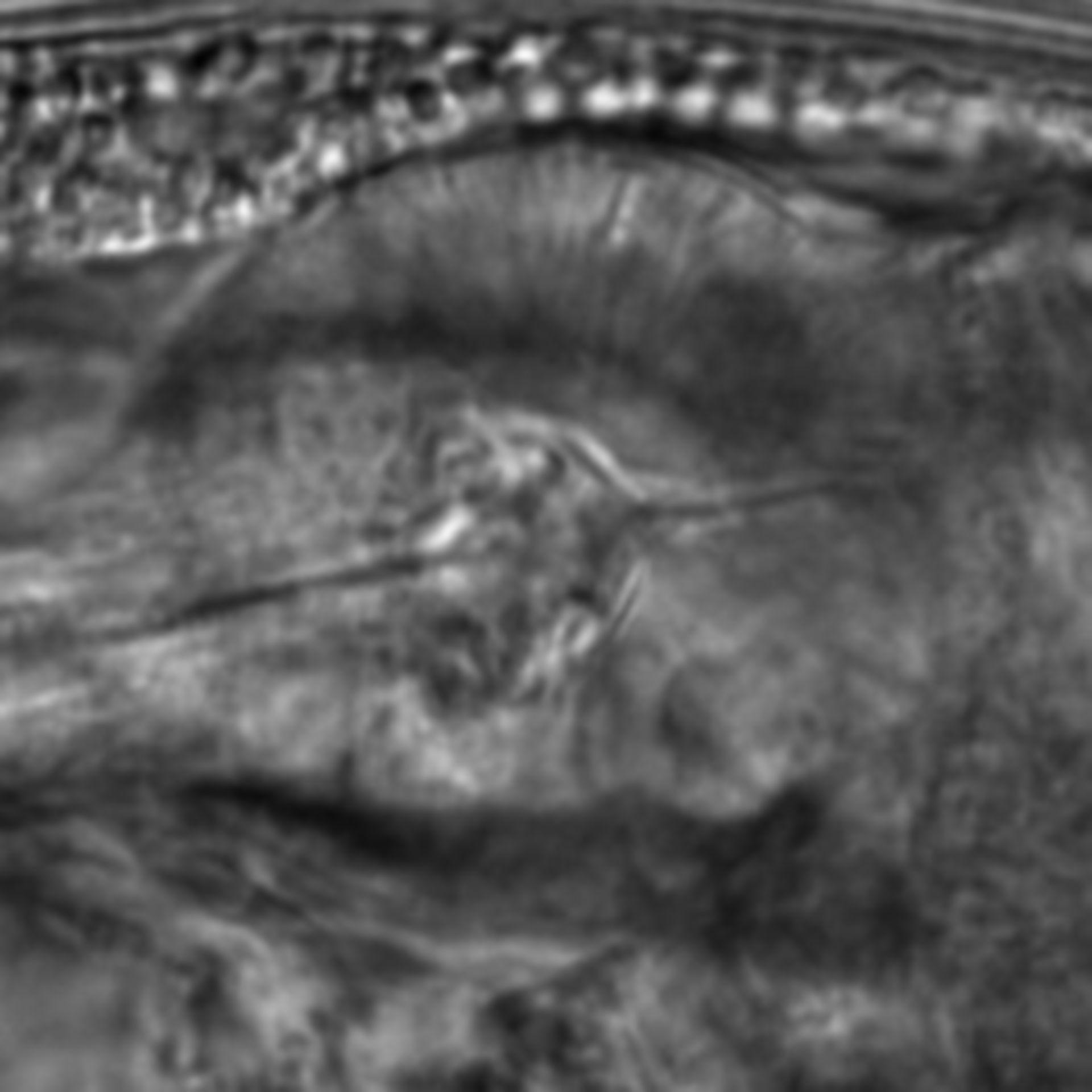Caenorhabditis elegans - CIL:1918