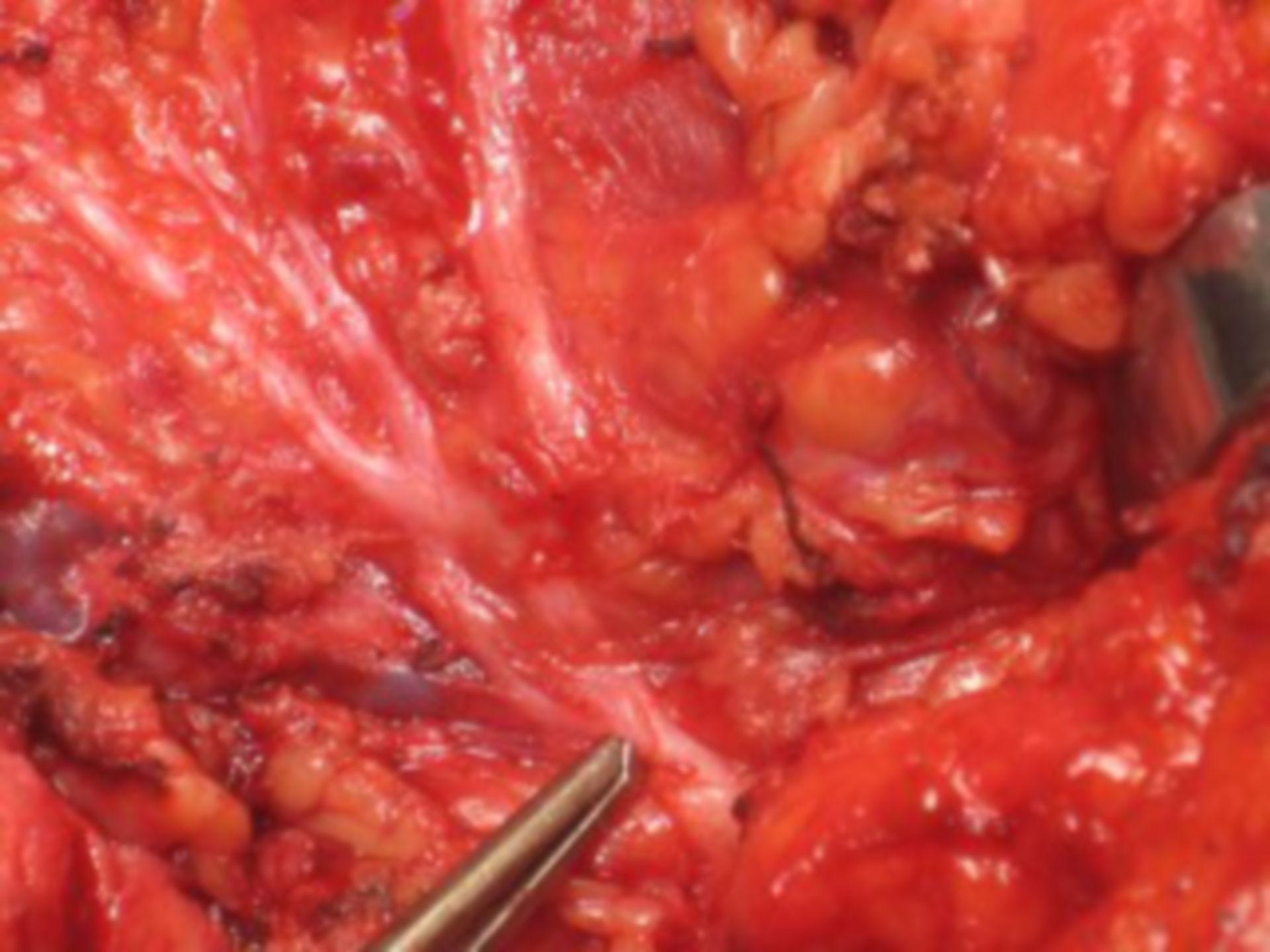 Surgery on the salivary gland (pic3)