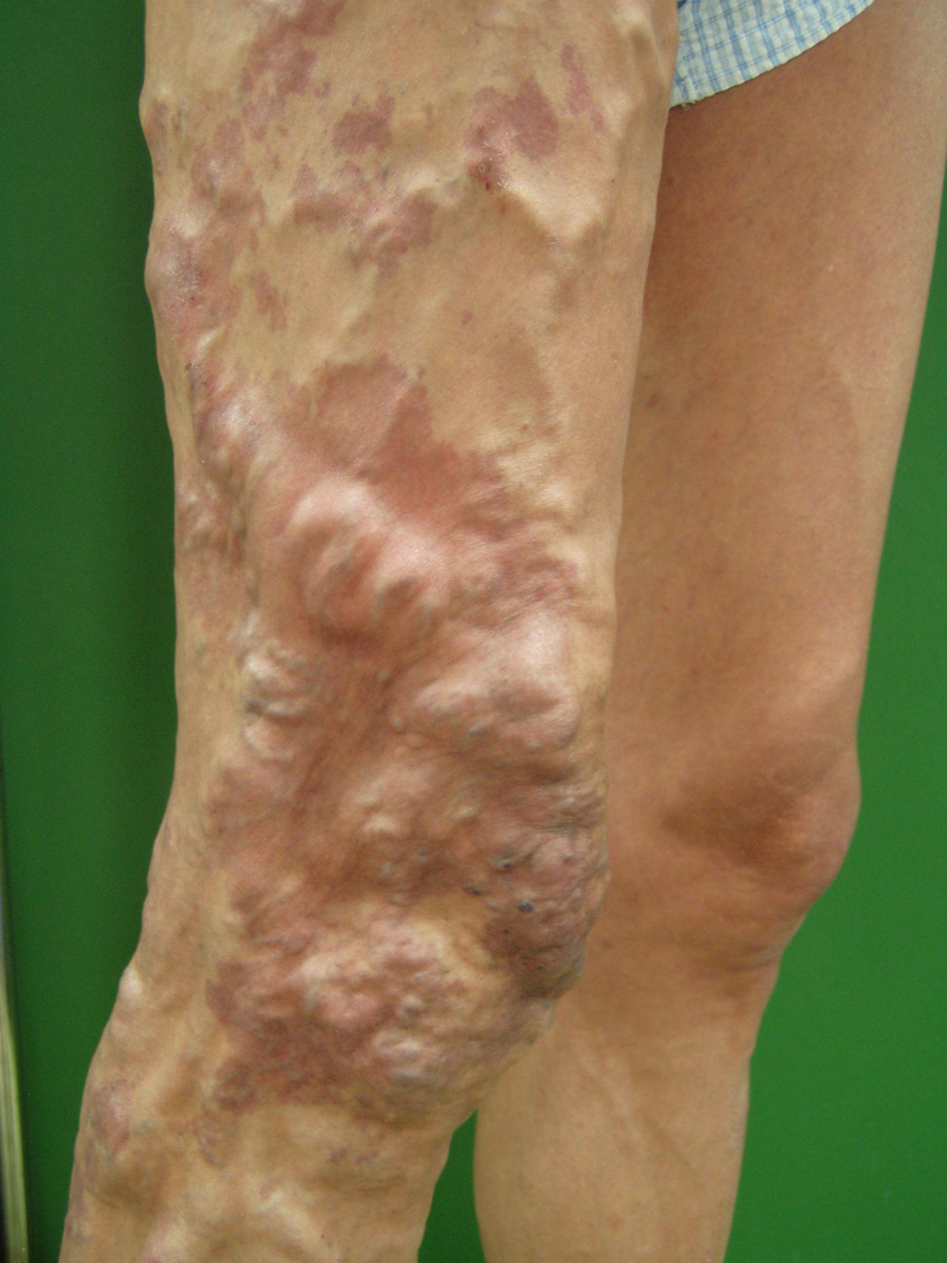 Klippel-Trénaunay-Syndrom 6