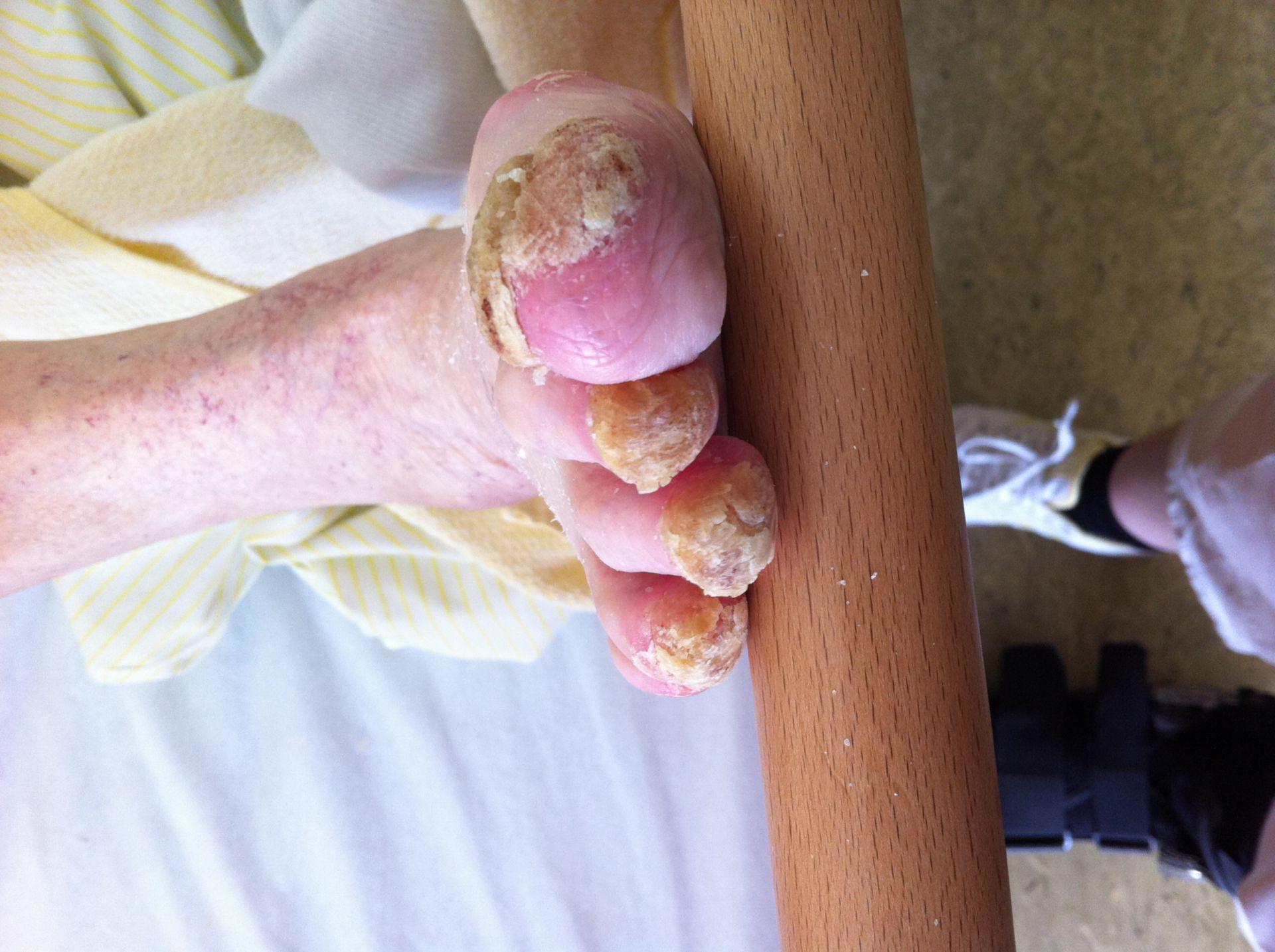 Psoriasis der Nägel