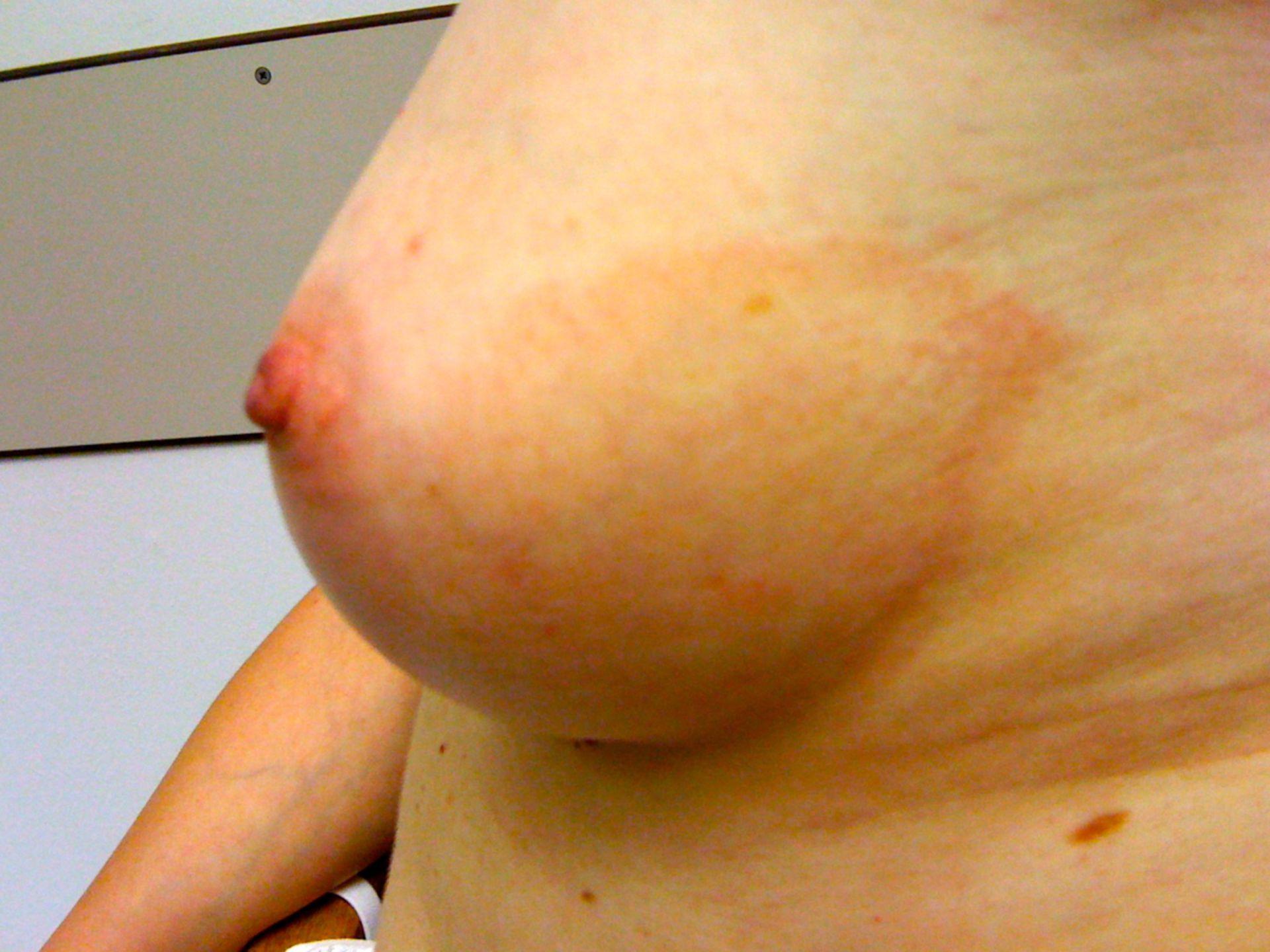 Erythema migrans nach Zeckenstich