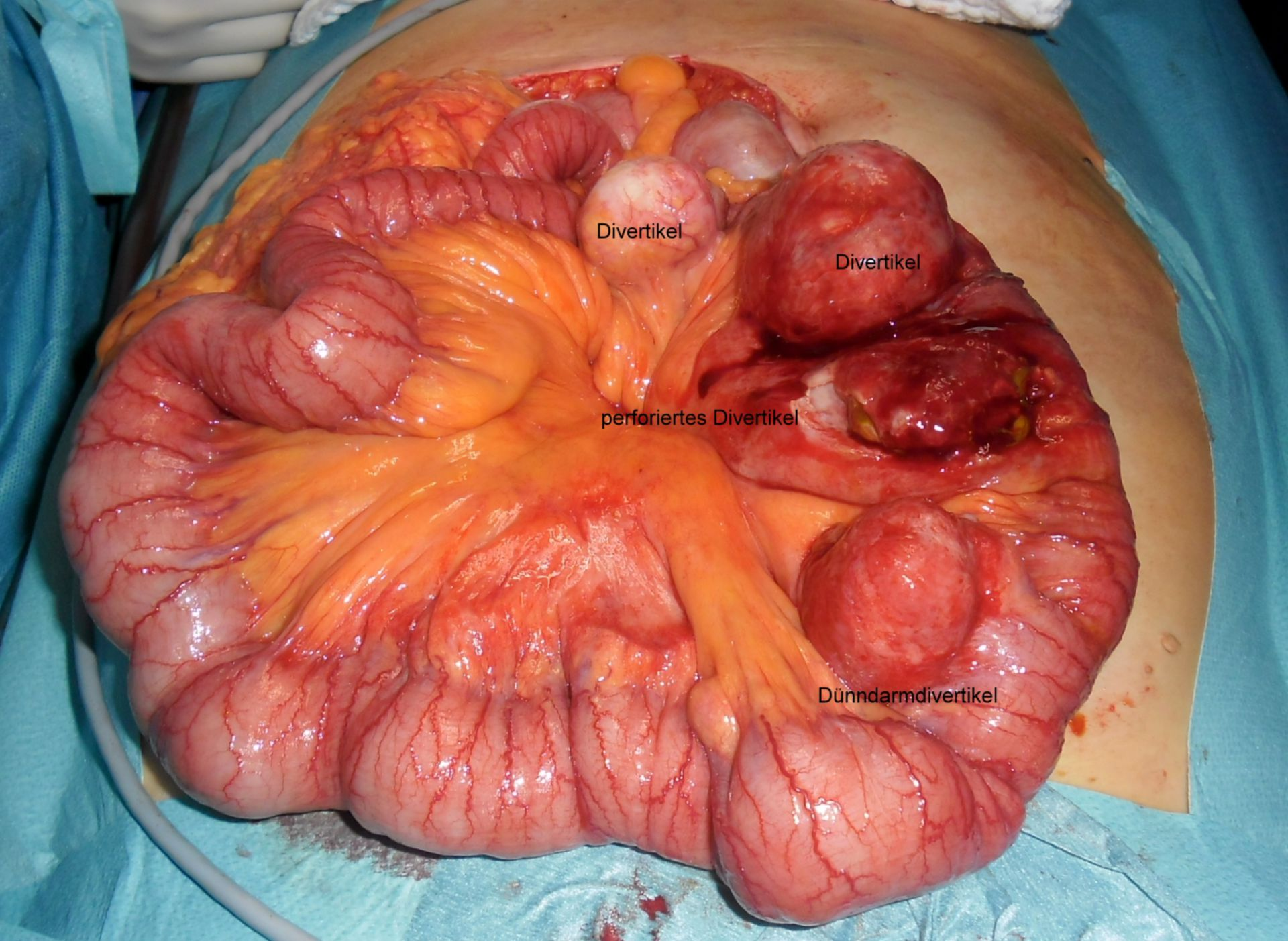 Diverticulitis del intestino delgado - perforación